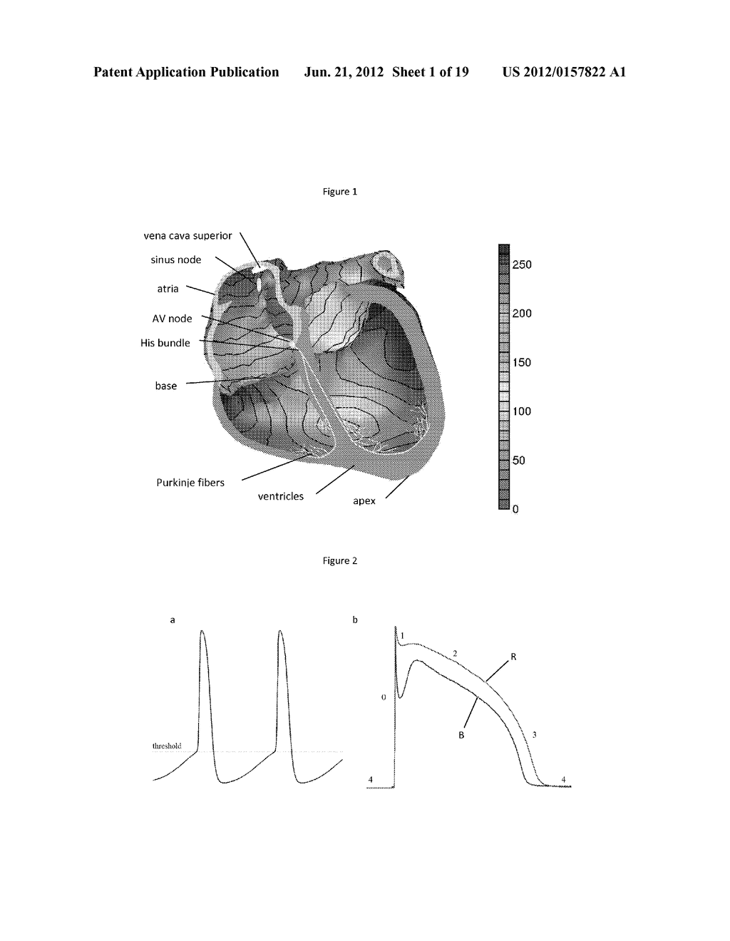 Inverse Imaging of Electrical Activity of a Heart Muscle - diagram, schematic, and image 02