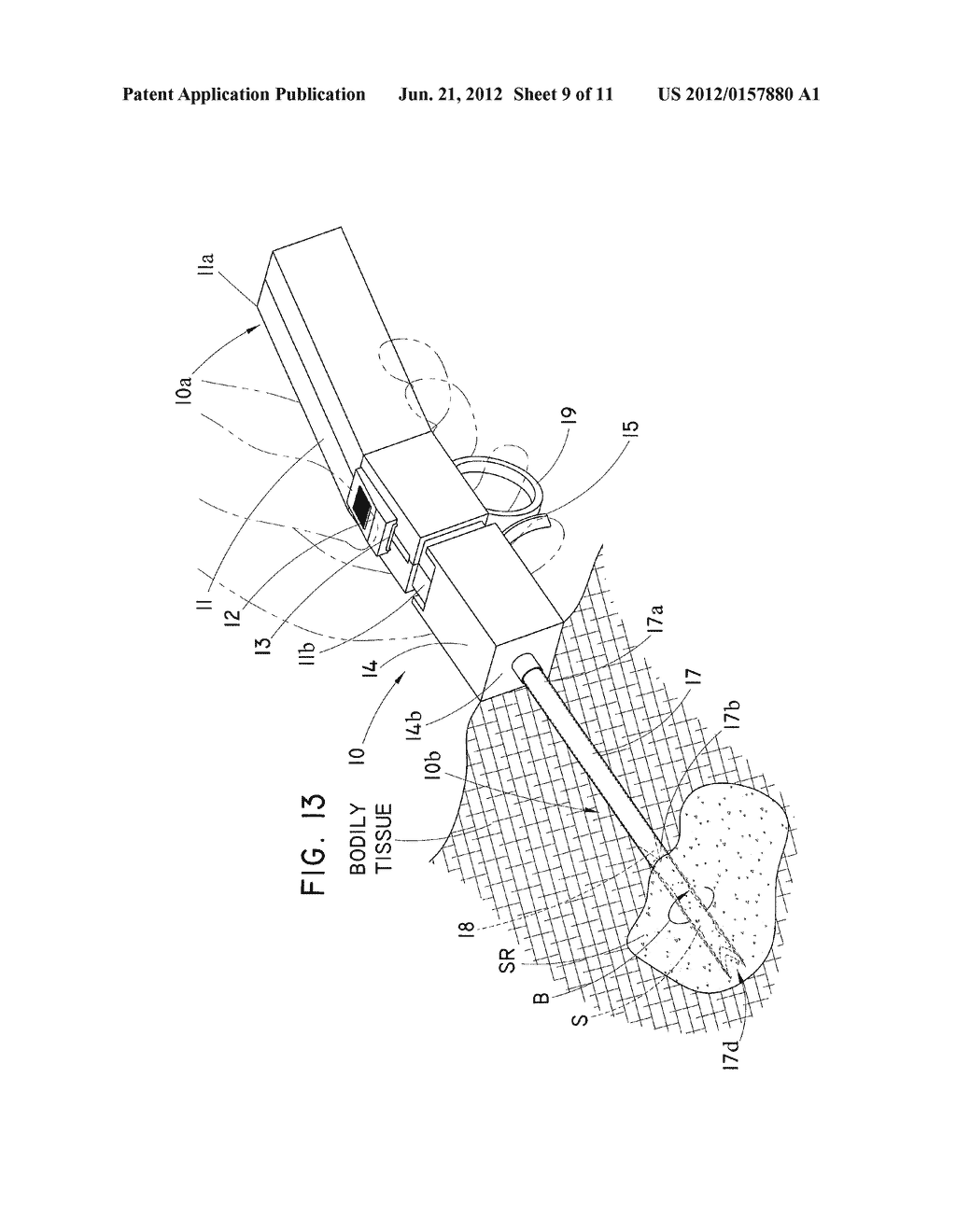 CORING TISSUE BIOPSY NEEDLE AND METHOD OF USE - diagram, schematic, and image 10