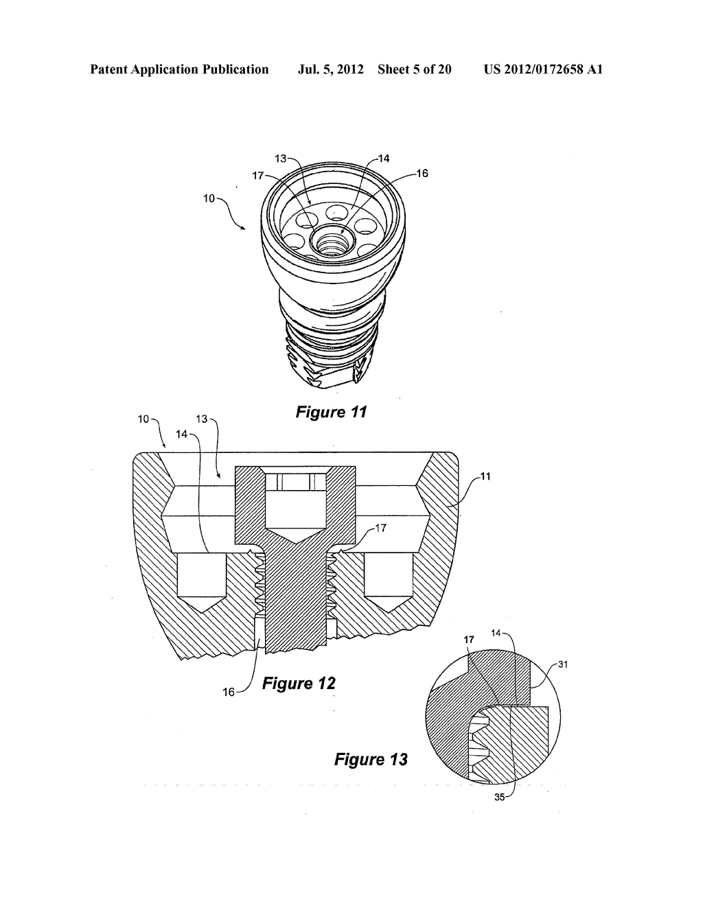 MEDICAL IMPLANT SYSTEM - diagram, schematic, and image 06