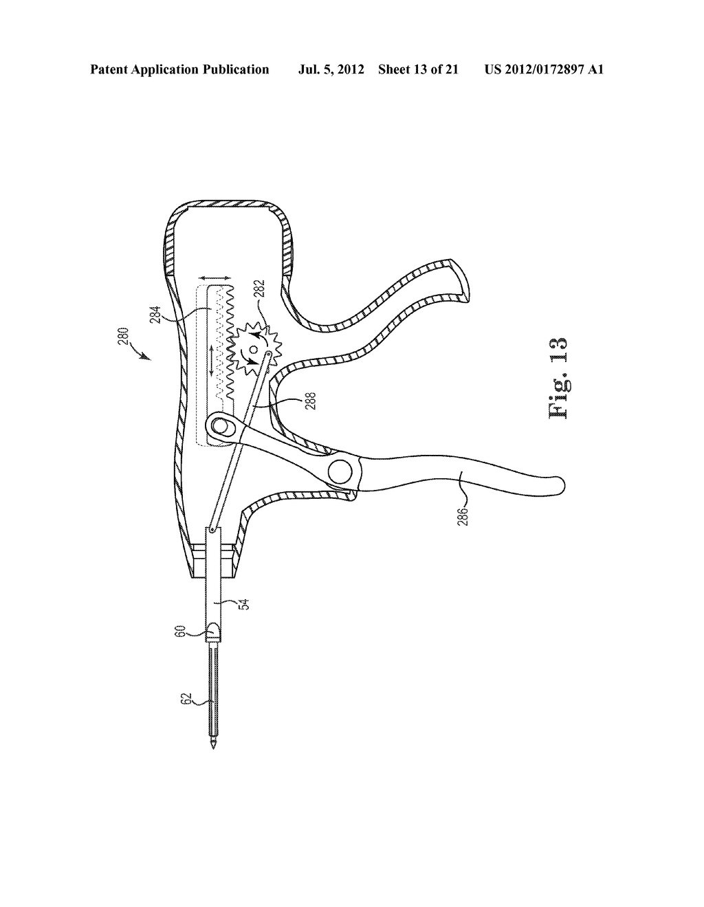 SUTURE SYSTEM AND ASSEMBLY INCLUDING A TUBULAR LEADER HAVING A CLASP - diagram, schematic, and image 14