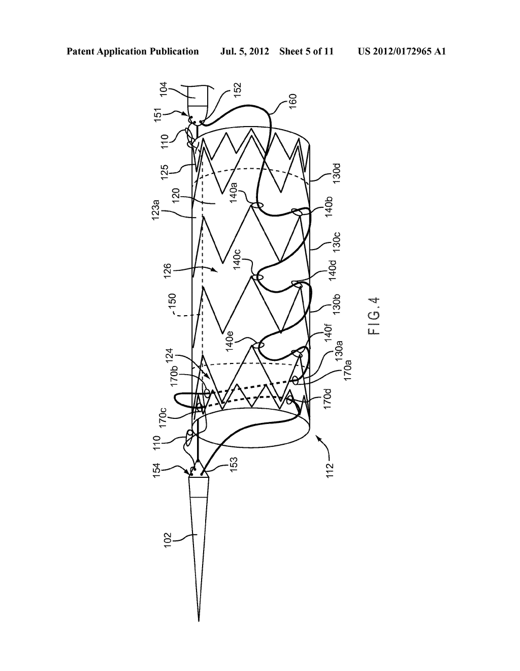 CONFORMABLE PROSTHESIS DELIVERY SYSTEM AND METHOD FOR DEPLOYMENT THEREOF - diagram, schematic, and image 06