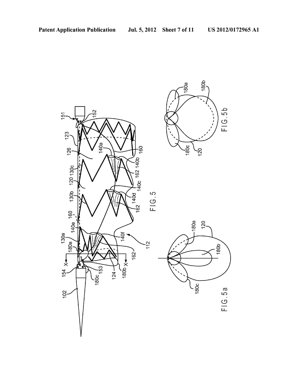 CONFORMABLE PROSTHESIS DELIVERY SYSTEM AND METHOD FOR DEPLOYMENT THEREOF - diagram, schematic, and image 08