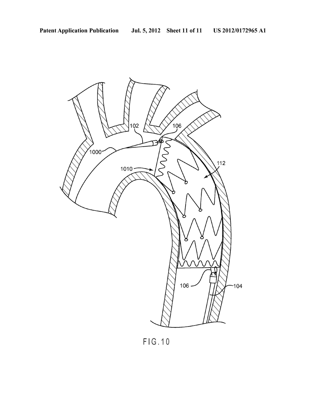 CONFORMABLE PROSTHESIS DELIVERY SYSTEM AND METHOD FOR DEPLOYMENT THEREOF - diagram, schematic, and image 12