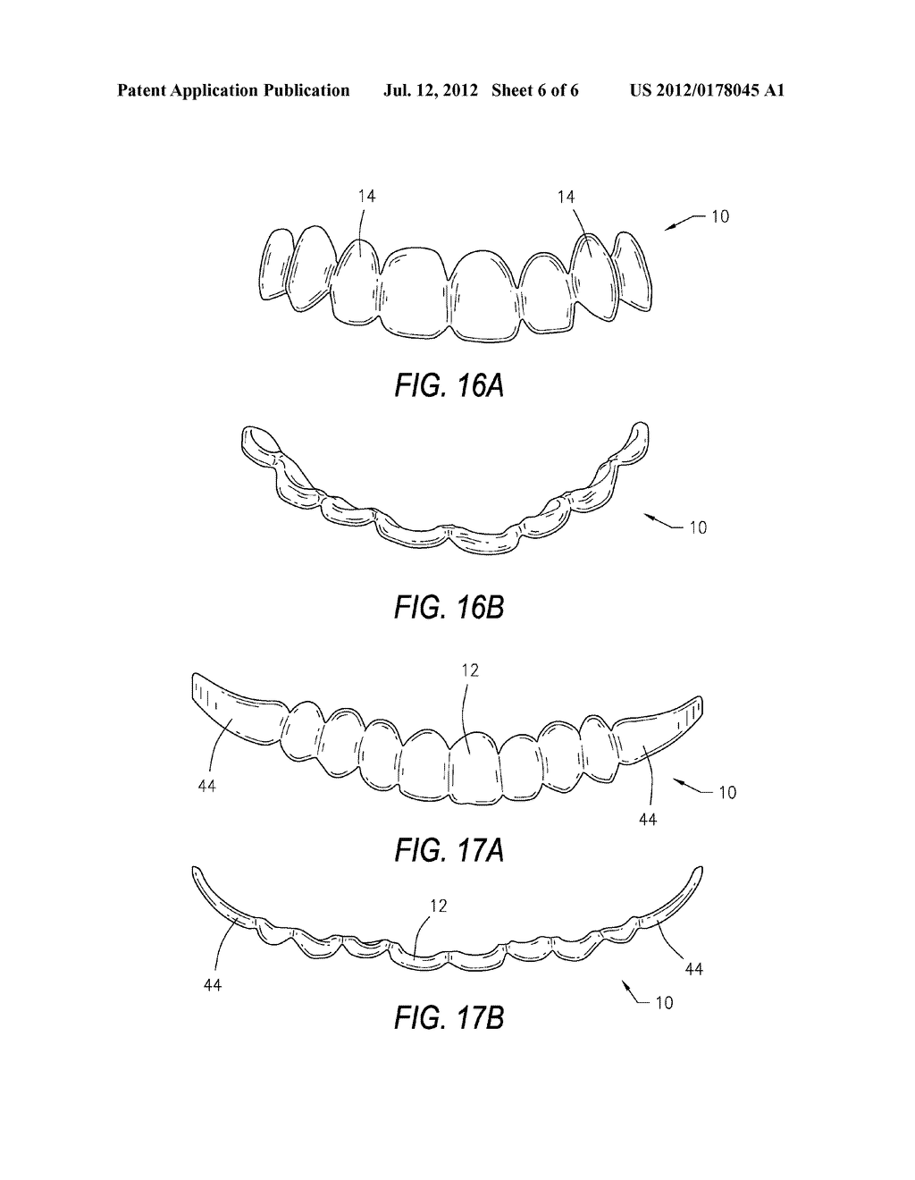 DENTAL DEVICE AND METHOD OF USE THEREOF - diagram, schematic, and image 07