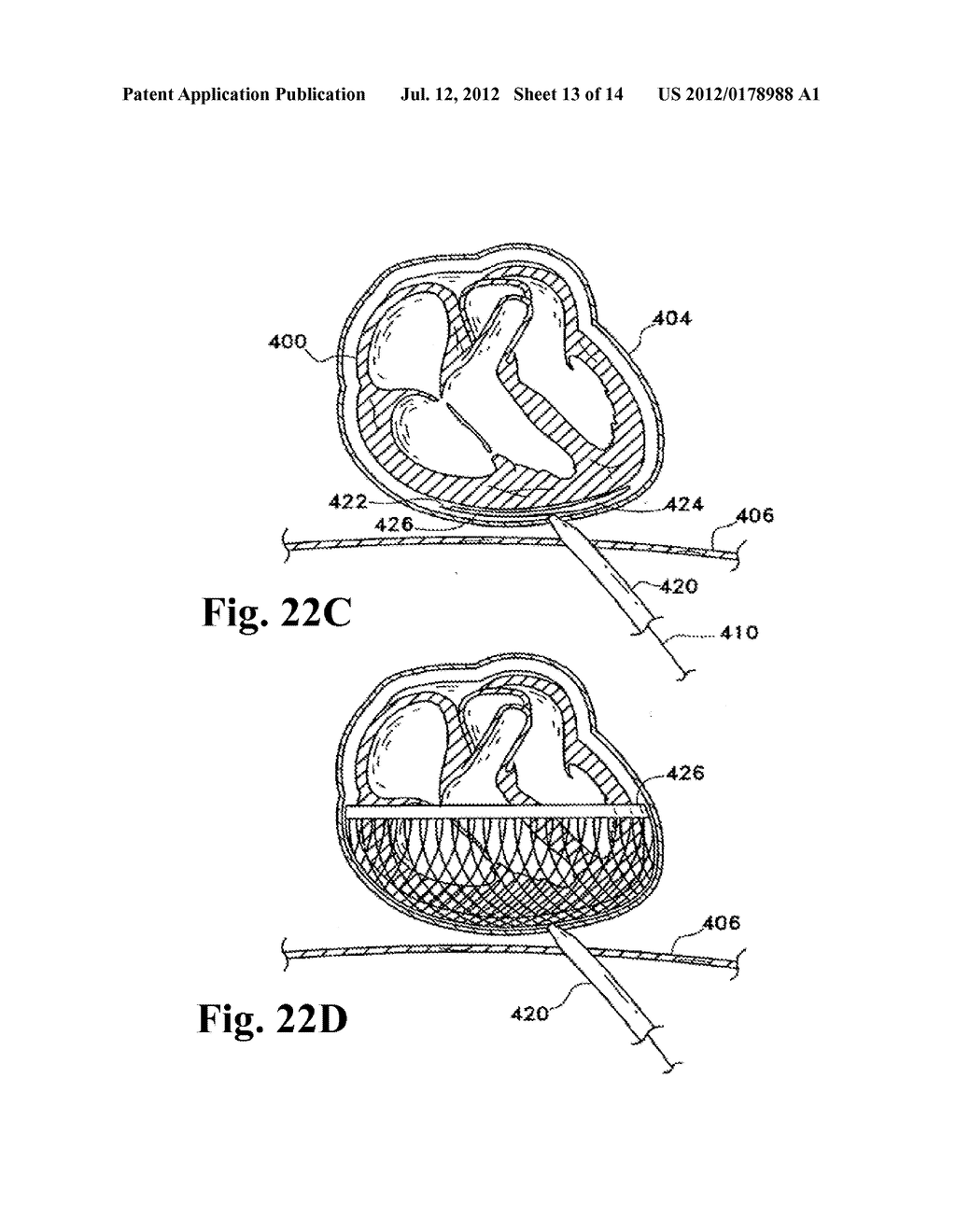 PERICARDIUM REINFORCING DEVICES AND METHODS FOR USING THEM - diagram, schematic, and image 14