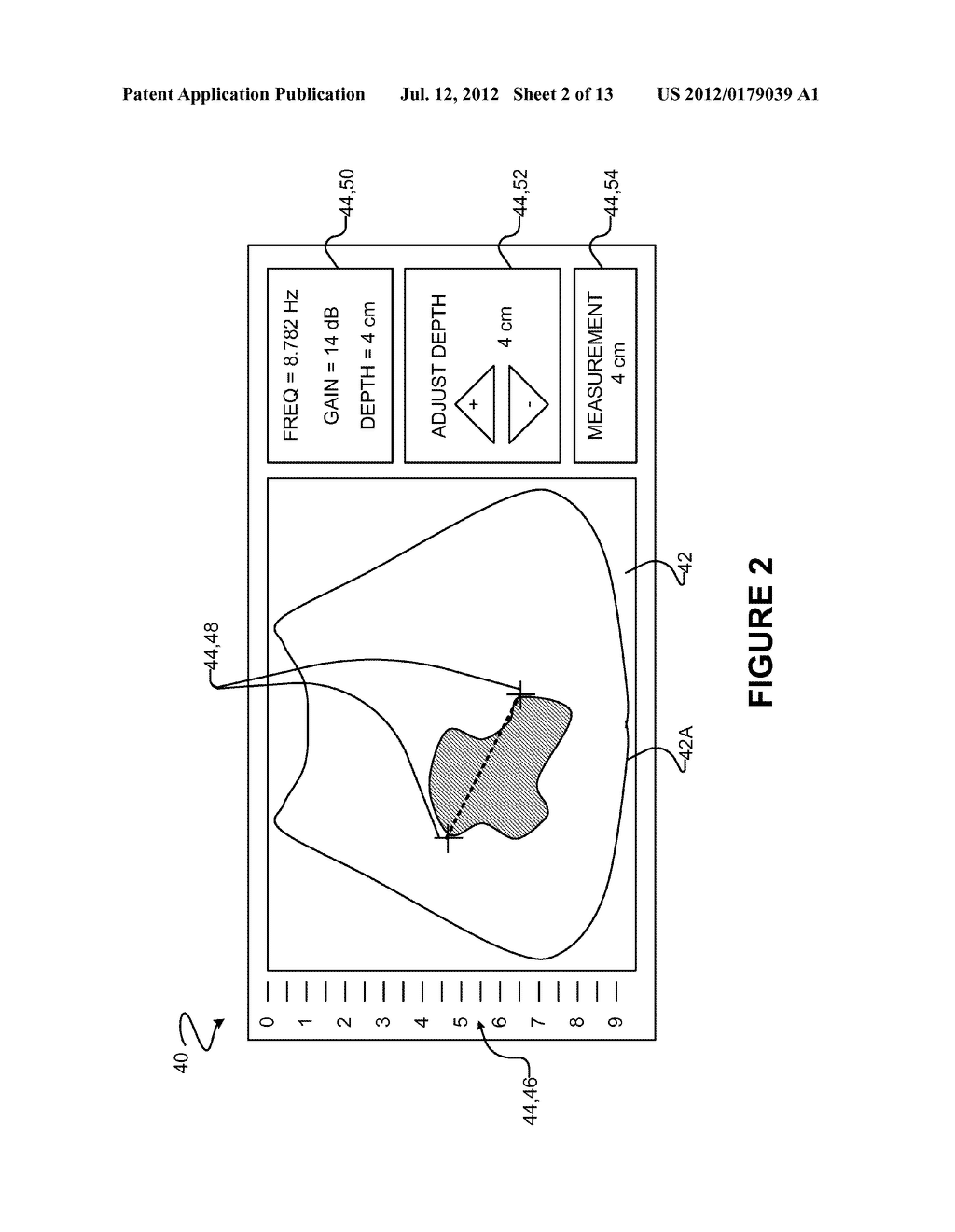METHODS AND APPARATUS FOR PRODUCING VIDEO RECORDS OF USE OF MEDICAL     ULTRASOUND IMAGING SYSTEMS - diagram, schematic, and image 03