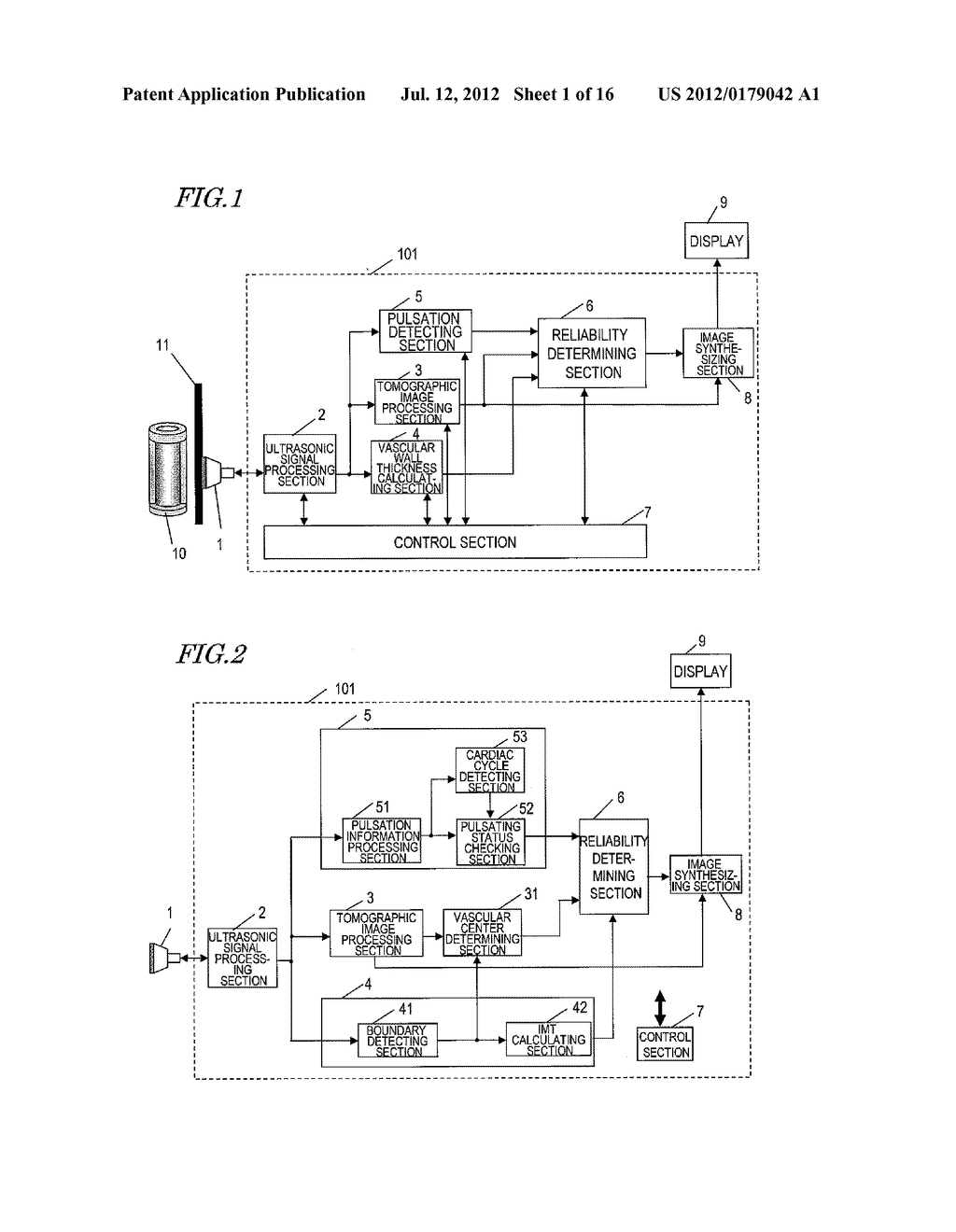 ULTRASONIC DIAGNOSTIC DEVICE, AND METHOD FOR MEASURING INITMA-MEDIA     COMPLEX THICKNESS - diagram, schematic, and image 02