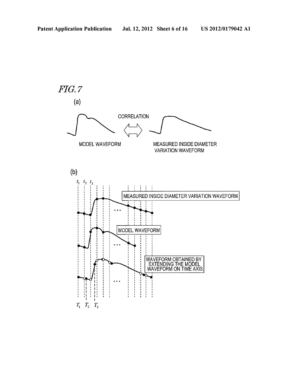 ULTRASONIC DIAGNOSTIC DEVICE, AND METHOD FOR MEASURING INITMA-MEDIA     COMPLEX THICKNESS - diagram, schematic, and image 07