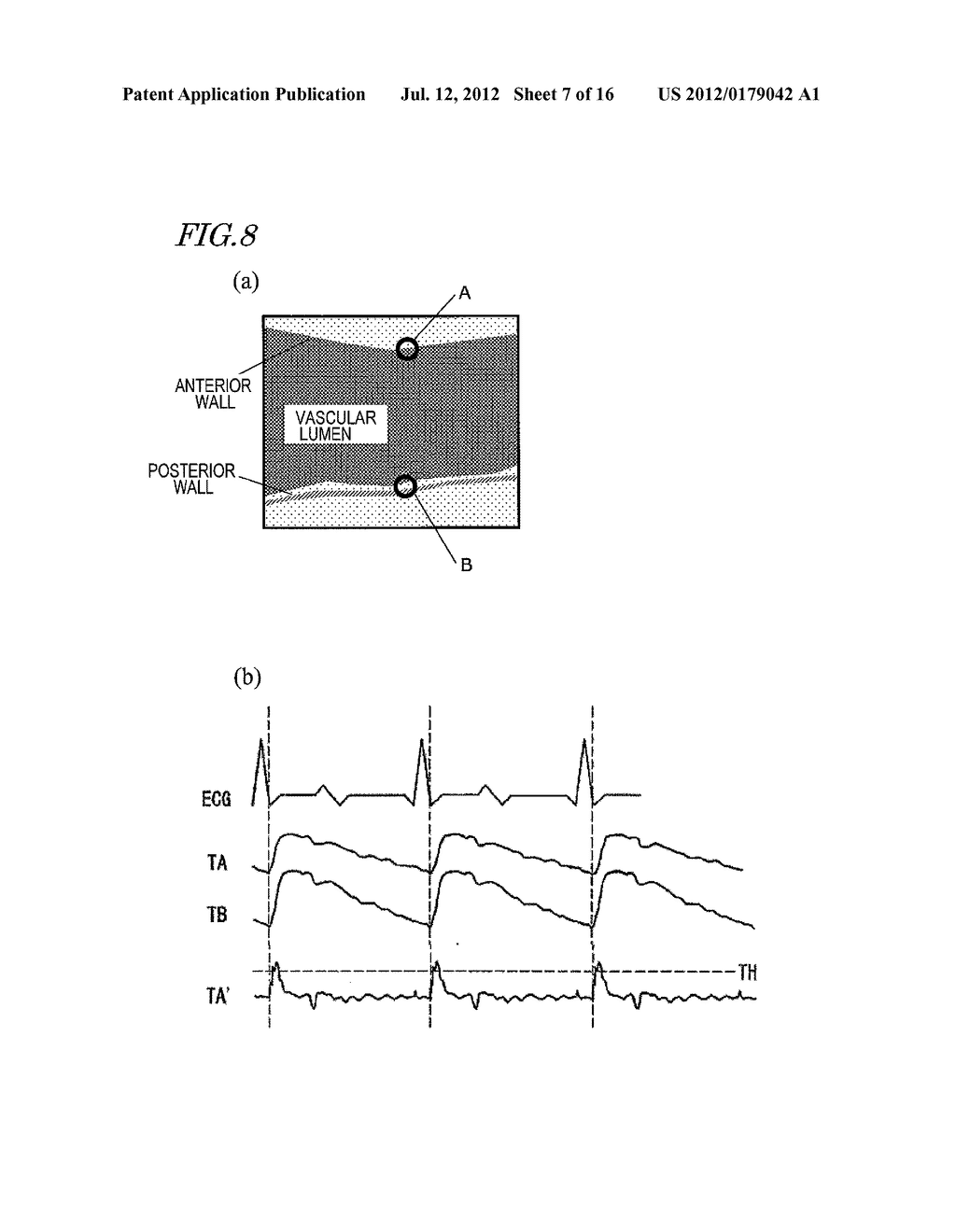 ULTRASONIC DIAGNOSTIC DEVICE, AND METHOD FOR MEASURING INITMA-MEDIA     COMPLEX THICKNESS - diagram, schematic, and image 08