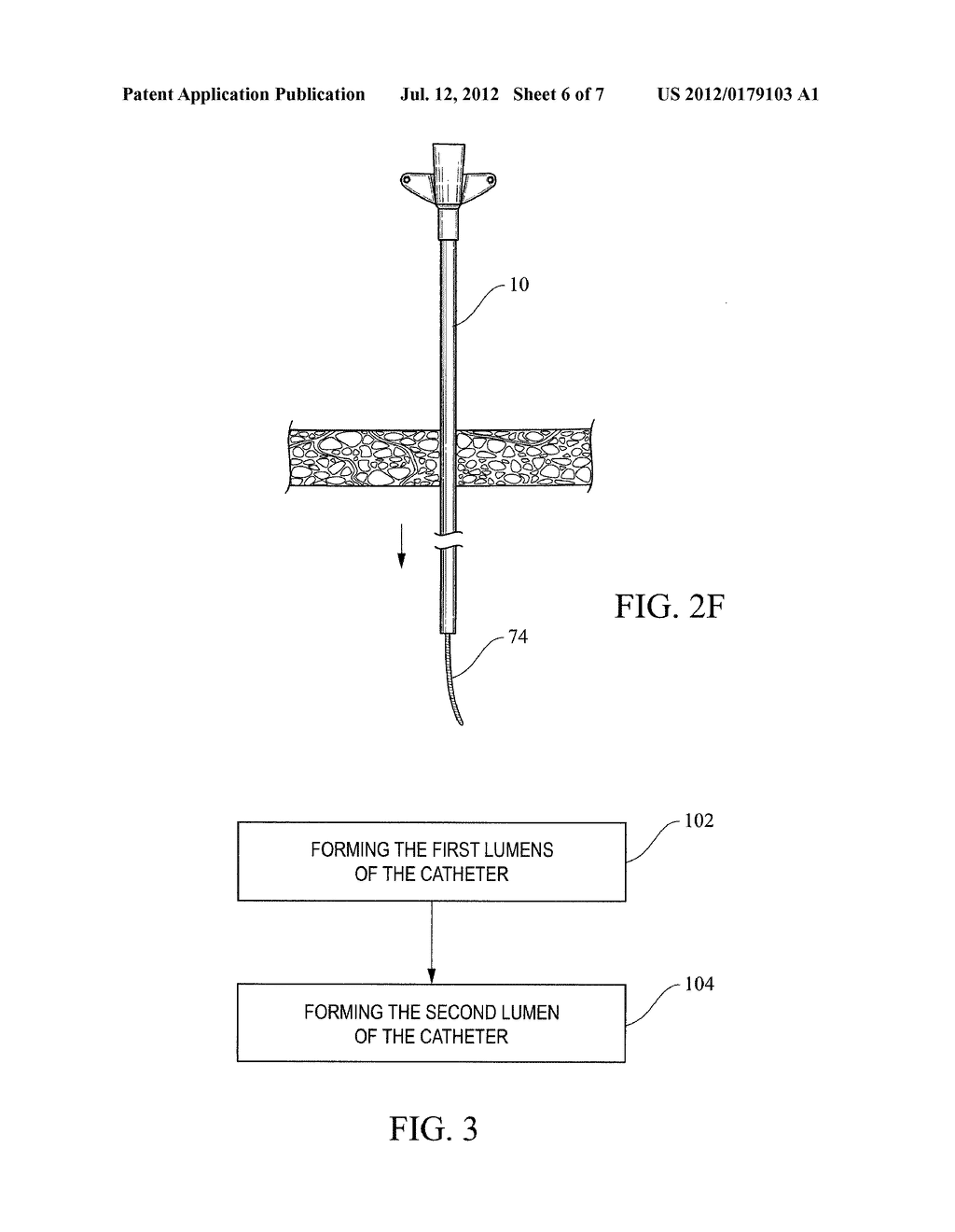 MULTI-LUMEN CATHETER WITH INCREASED FLOW AREA - diagram, schematic, and image 07