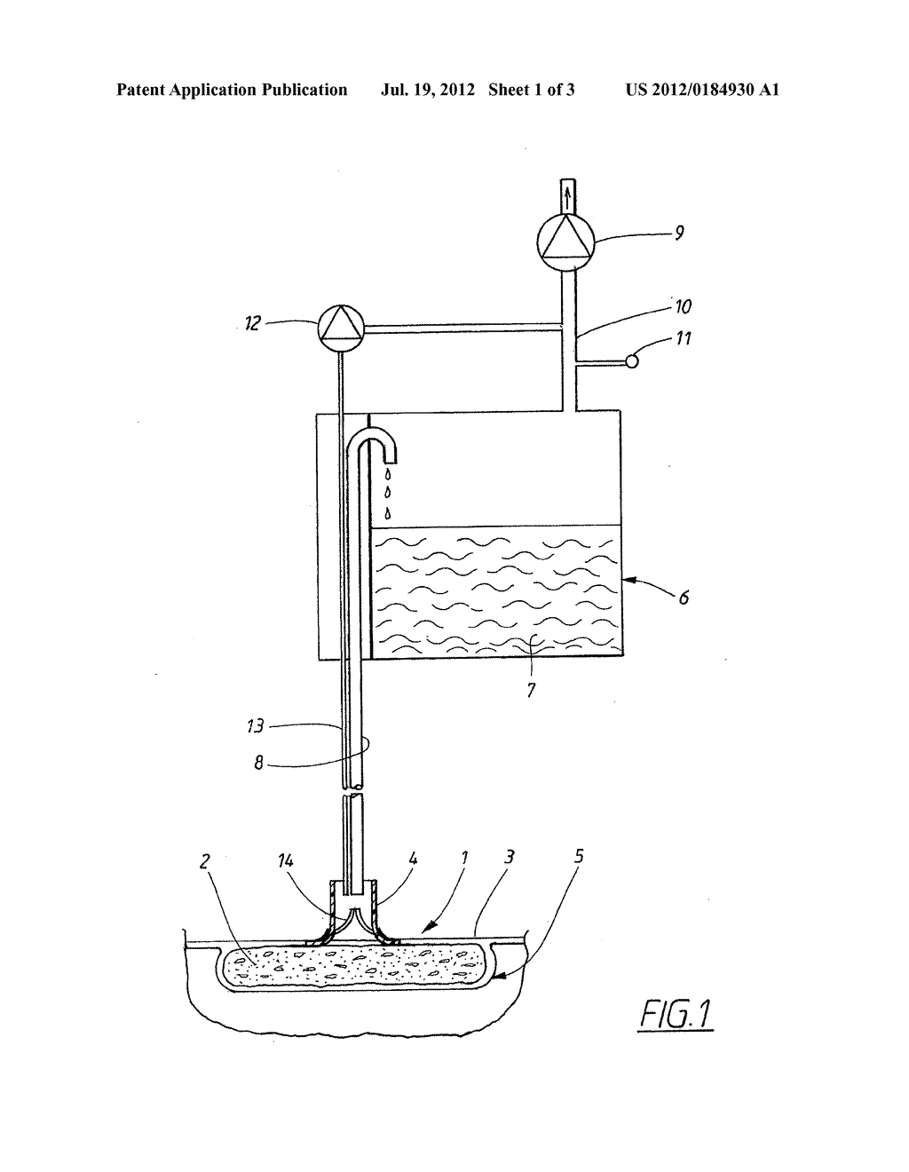 APPARATUS AND METHOD FOR CONTROLLING THE NEGATIVE PRESSURE IN A WOUND - diagram, schematic, and image 02