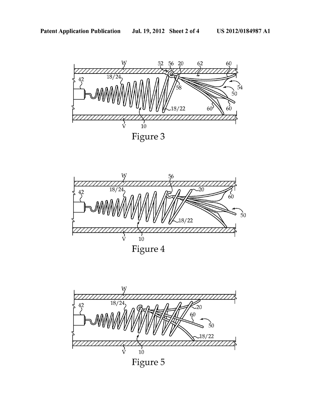 Vascular Implant Retrieval Method, Retrieval Assembly And Tool For Same - diagram, schematic, and image 03