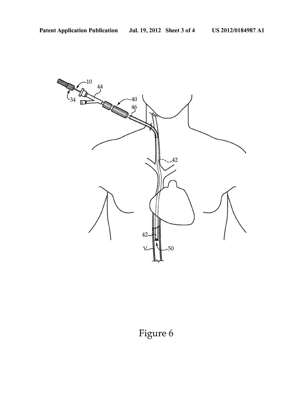 Vascular Implant Retrieval Method, Retrieval Assembly And Tool For Same - diagram, schematic, and image 04