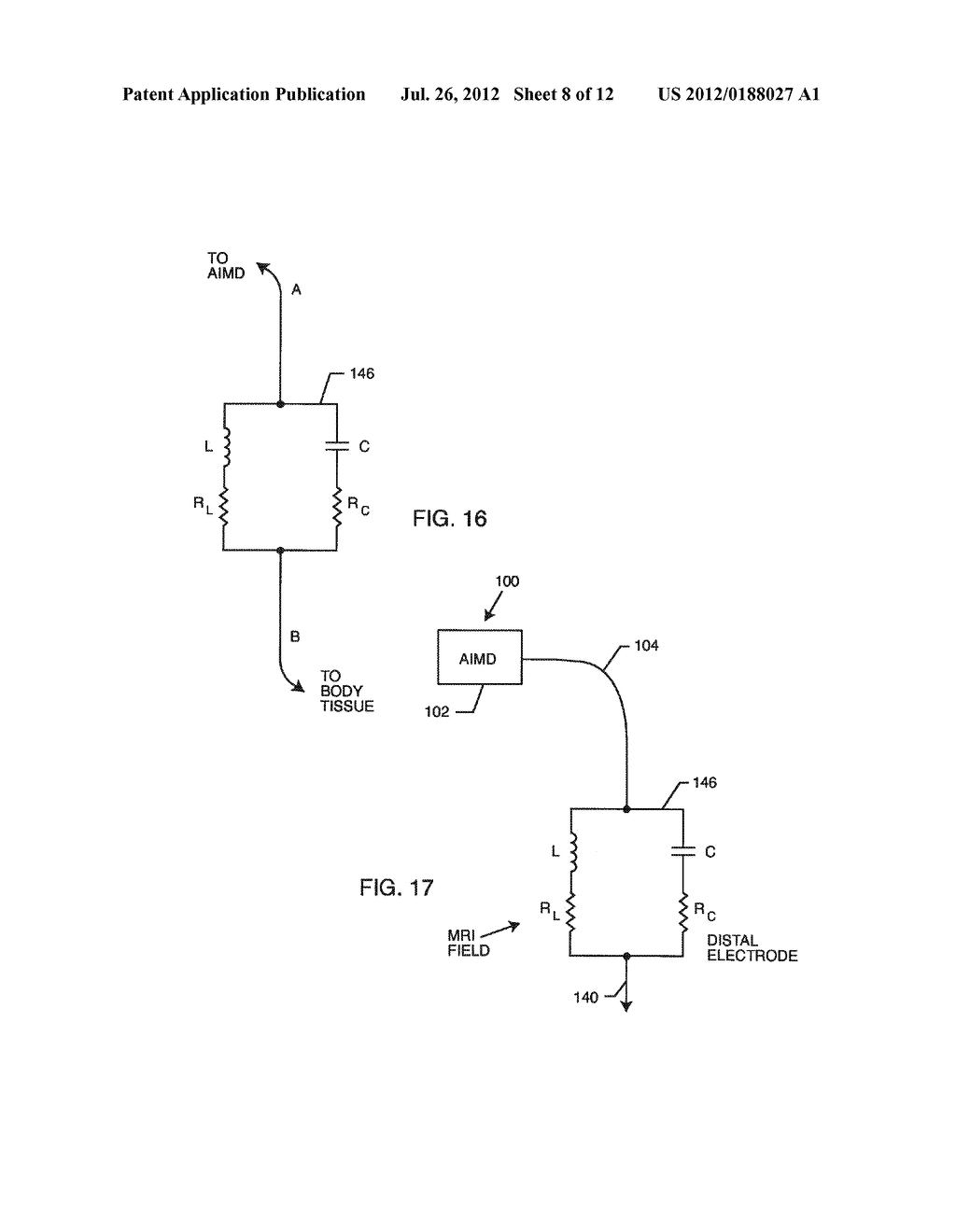 Band Stop Filter Employing A Capacitor And An Inductor Tank Circuit To Enhance Mri Compatibility Of Active Medical Devices Diagram Schematic