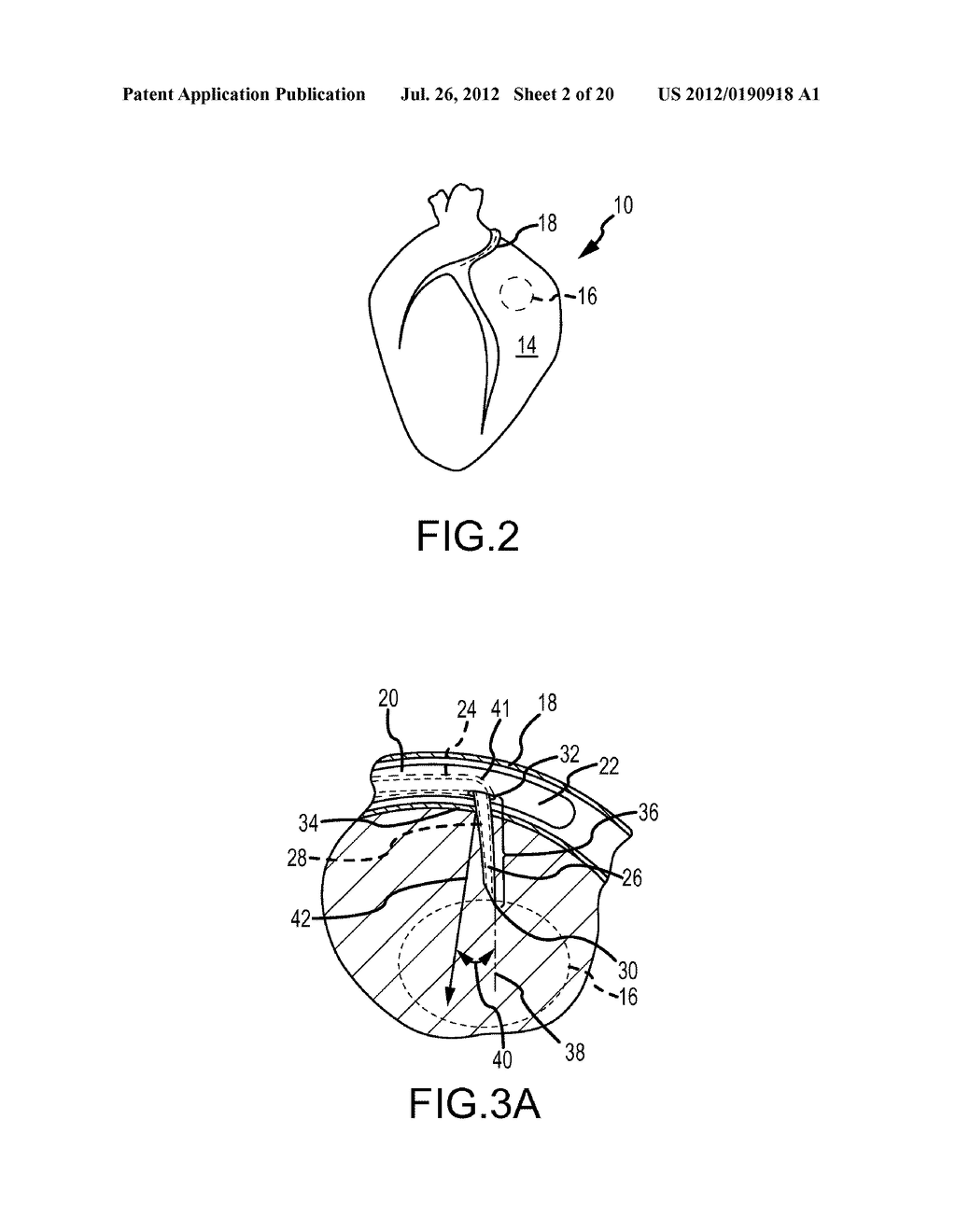 APPARATUS AND METHODS FOR SUPPORTING CARDIAC ISCHEMIC TISSUE BY MEANS OF     EMBEDDED STRUCTURES - diagram, schematic, and image 03
