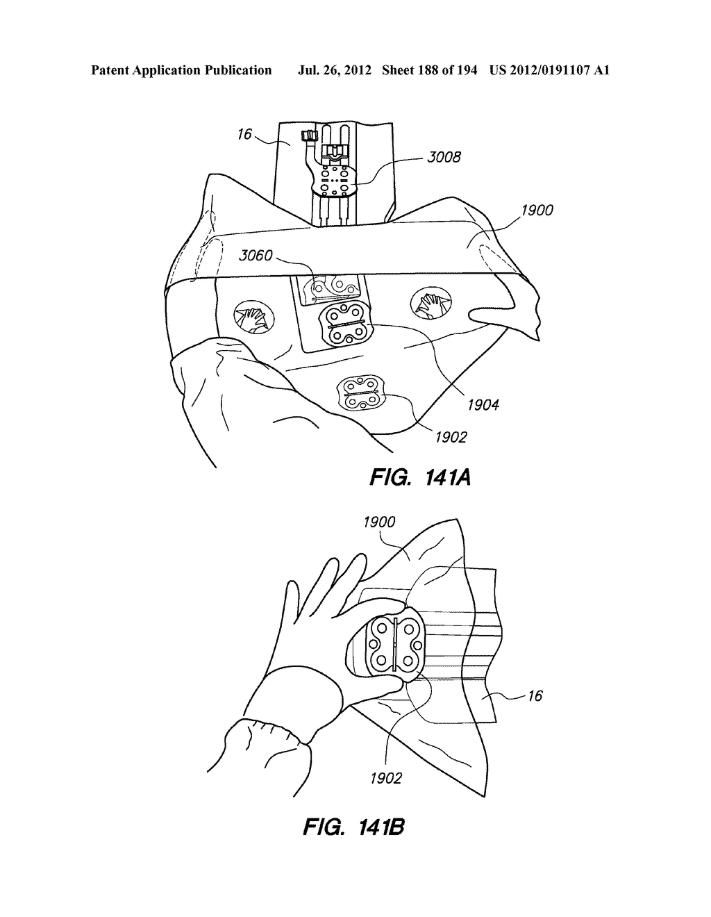 SYSTEMS AND METHODS FOR POSITIONING AN ELONGATE MEMBER INSIDE A BODY - diagram, schematic, and image 189