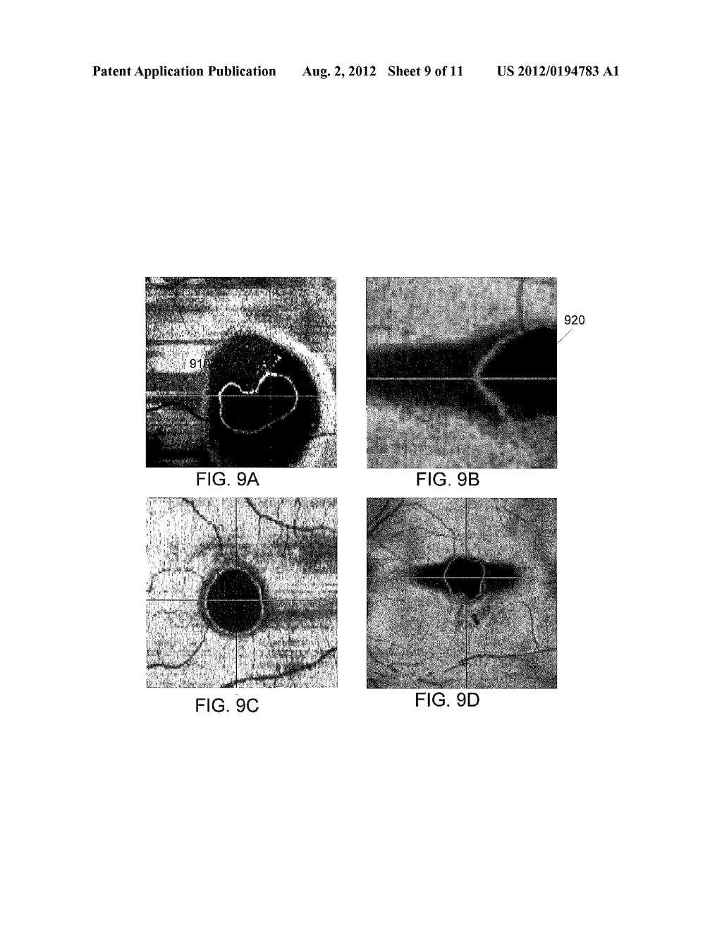 COMPUTER-AIDED DIAGNOSIS OF RETINAL PATHOLOGIES USING FRONTAL EN-FACE     VIEWS OF OPTICAL COHERENCE TOMOGRAPHY - diagram, schematic, and image 10
