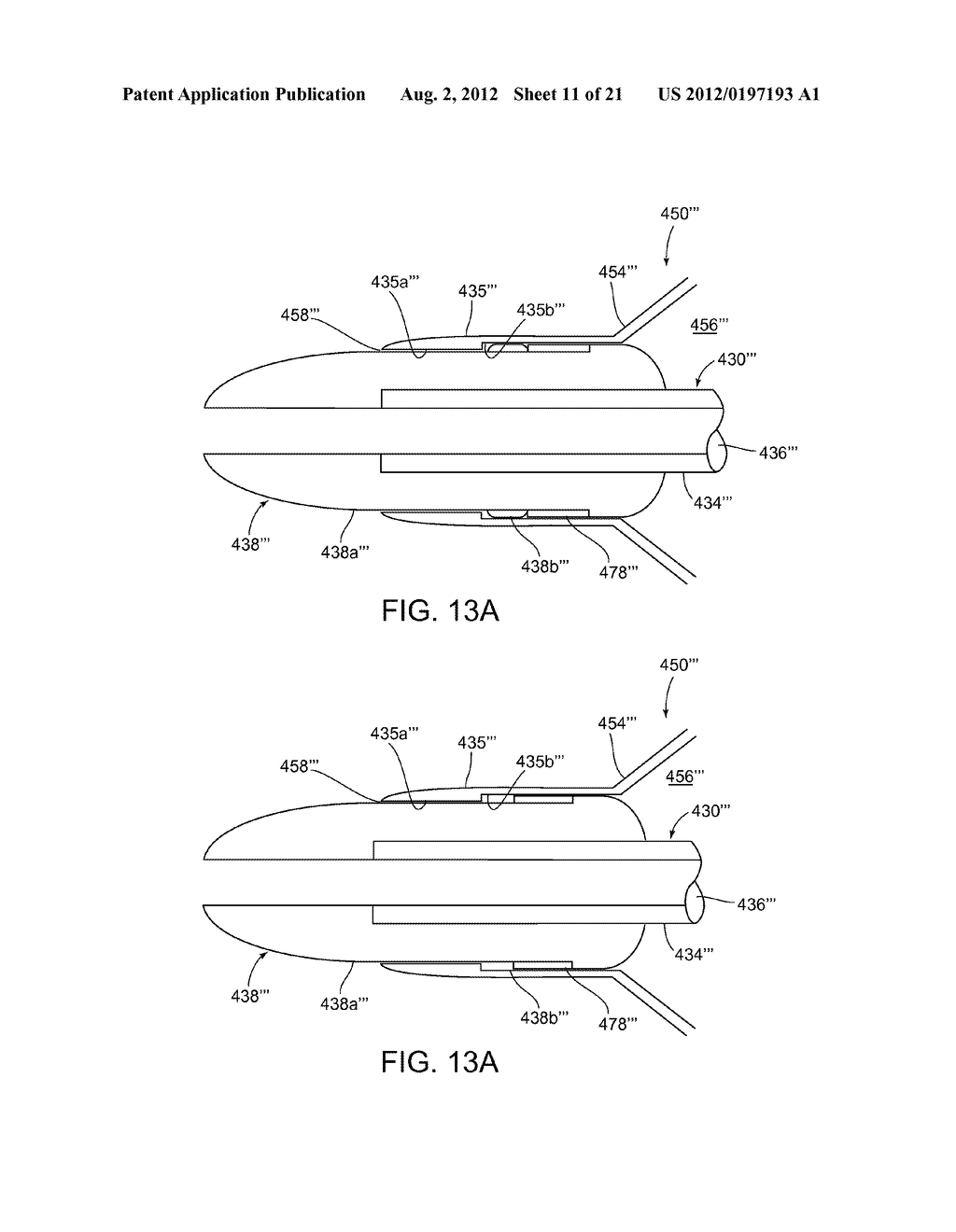 APPARATUS AND METHODS FOR TREATING OBSTRUCTIONS WITHIN BODY LUMENS - diagram, schematic, and image 12
