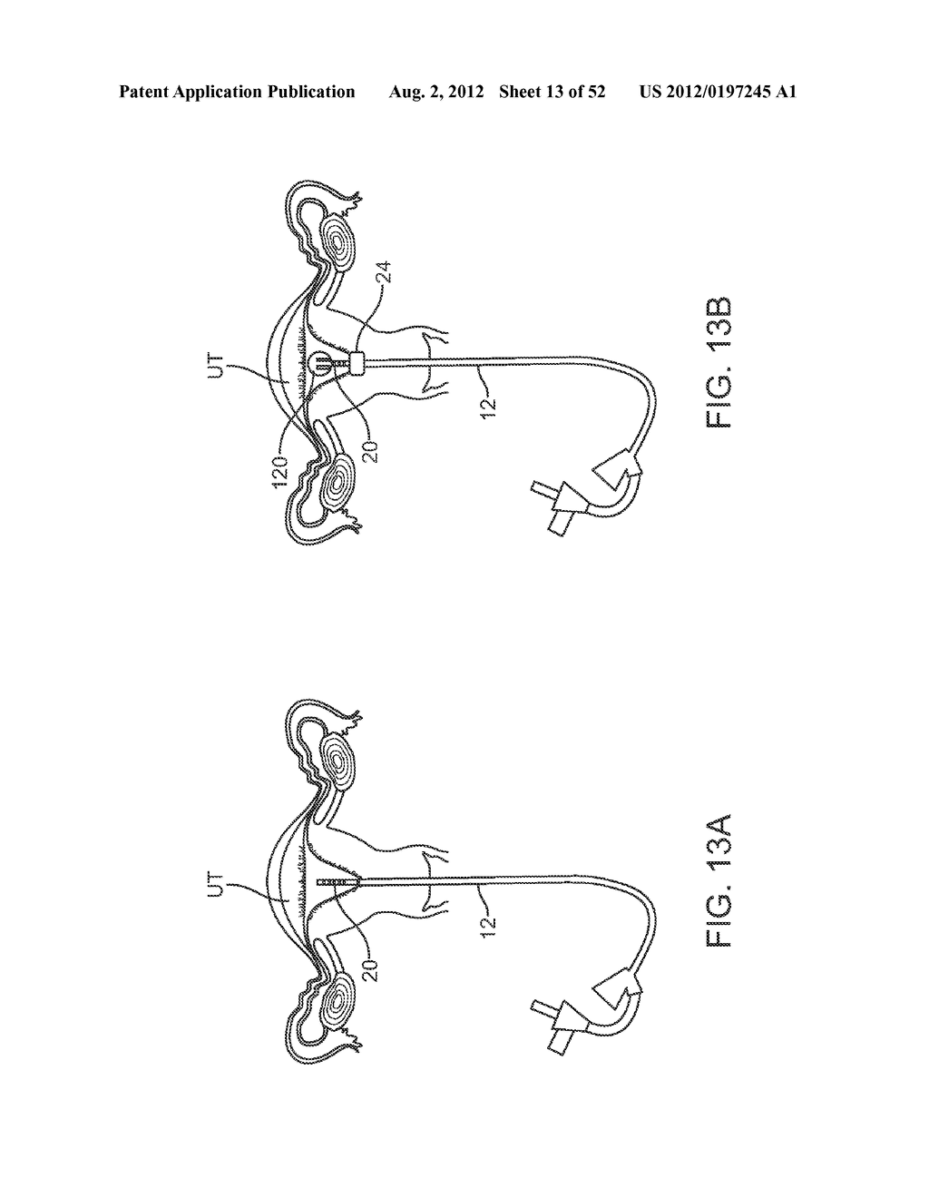 METHODS AND APPARATUS FOR CYROGENIC TREATMENT OF A BODY CAVITY OR LUMEN - diagram, schematic, and image 14