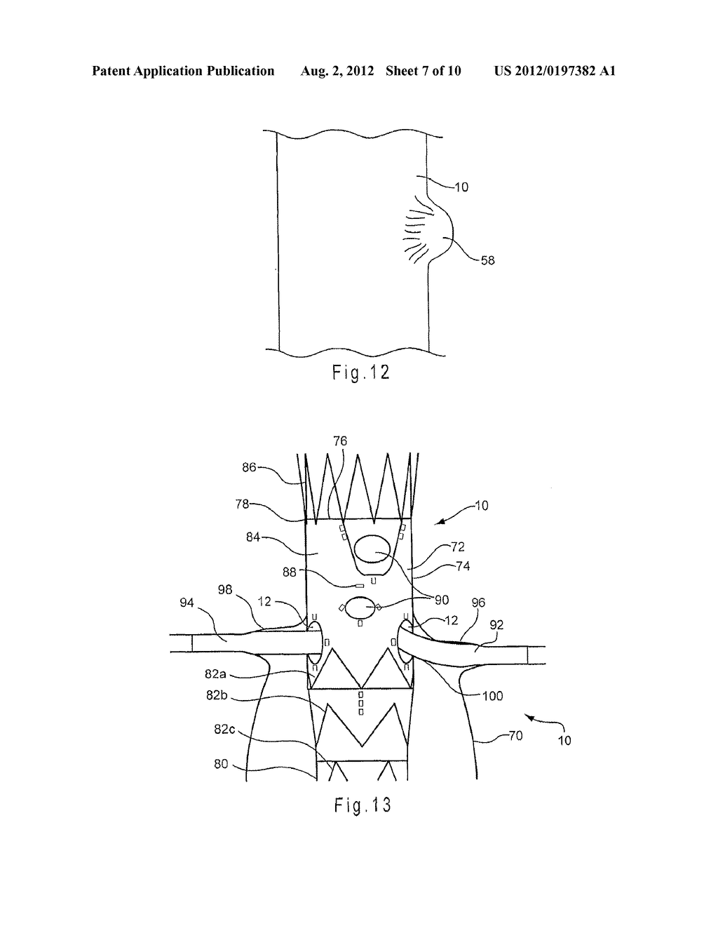 ENDOLUMINAL PROSTHESIS COMPRISING A VALVE REPLACEMENT AND AT LEAST ONE     FENESTRATION - diagram, schematic, and image 08