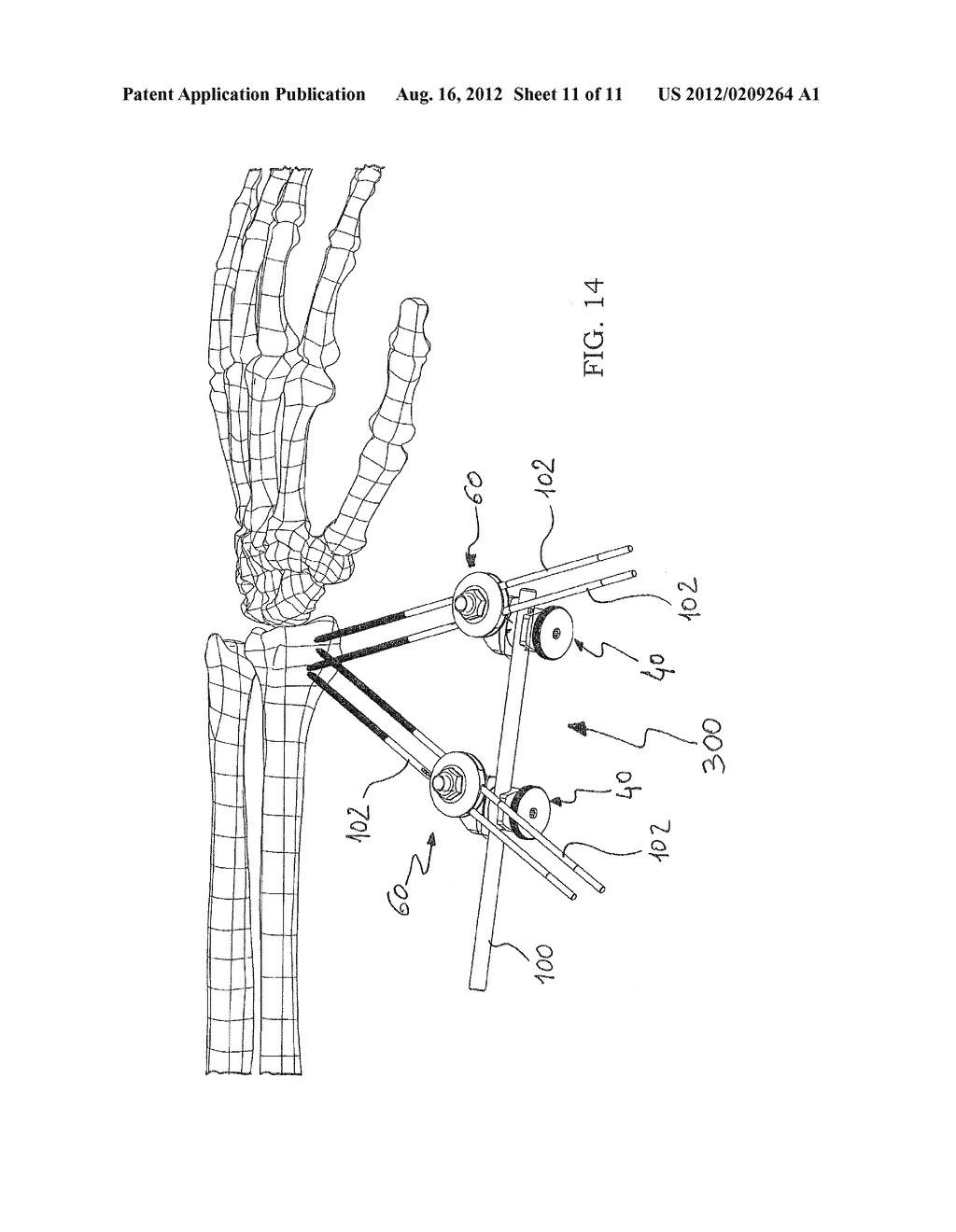 CLAMP FOR TEMPORARY OR DEFINITIVE EXTERNAL ORTHOPAEDIC FIXATION, AND     EXTERNAL FIXATION SYSTEM COMPRISING SAID CLAMP - diagram, schematic, and image 12