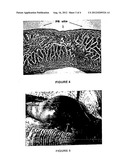 BIODEGRADABLE, NON-TOXIC BIOLOGICAL ADHESIVE FOR USE IN ABDOMINAL SURGERY diagram and image