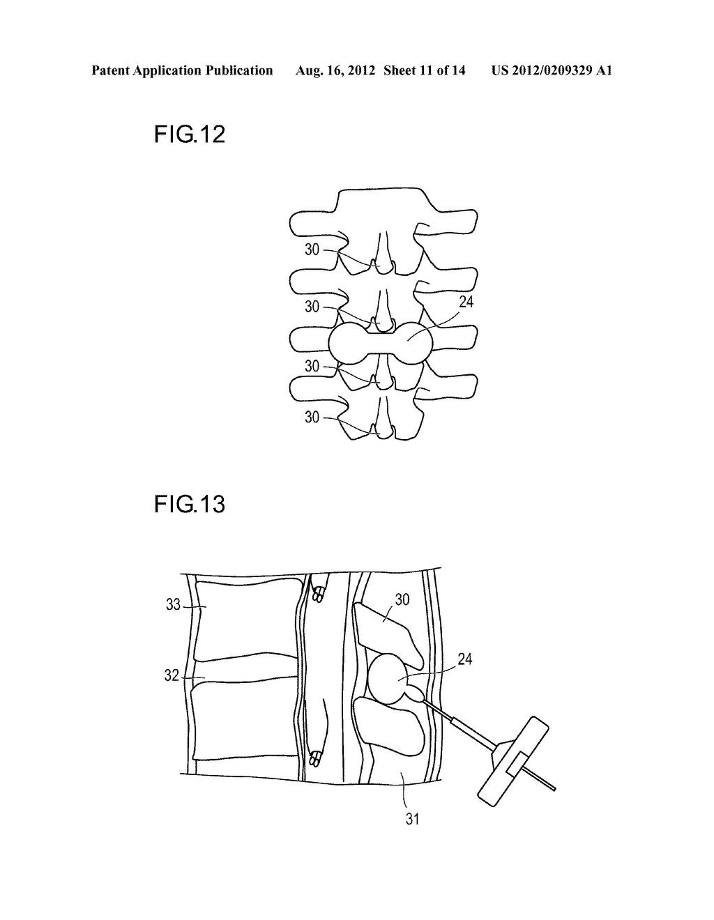 METHOD FOR DILATING BETWEEN SPINOUS PROCESSES - diagram, schematic, and image 12