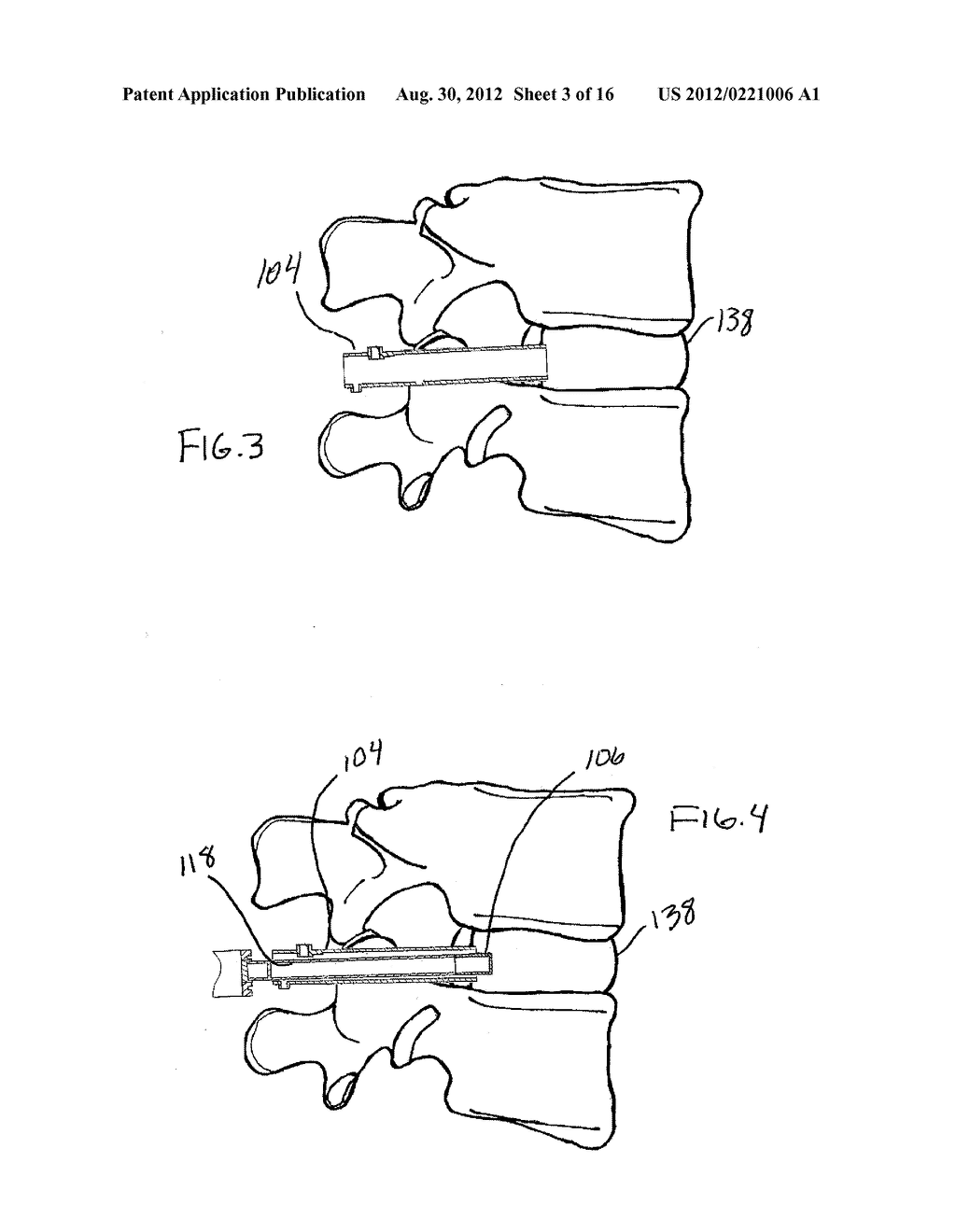 Method for Manipulating Intervertebral Tissue - diagram, schematic, and image 04