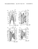 STENT AND METHOD OF FORMING A STENT WITH INTEGRAL BARBS diagram and image