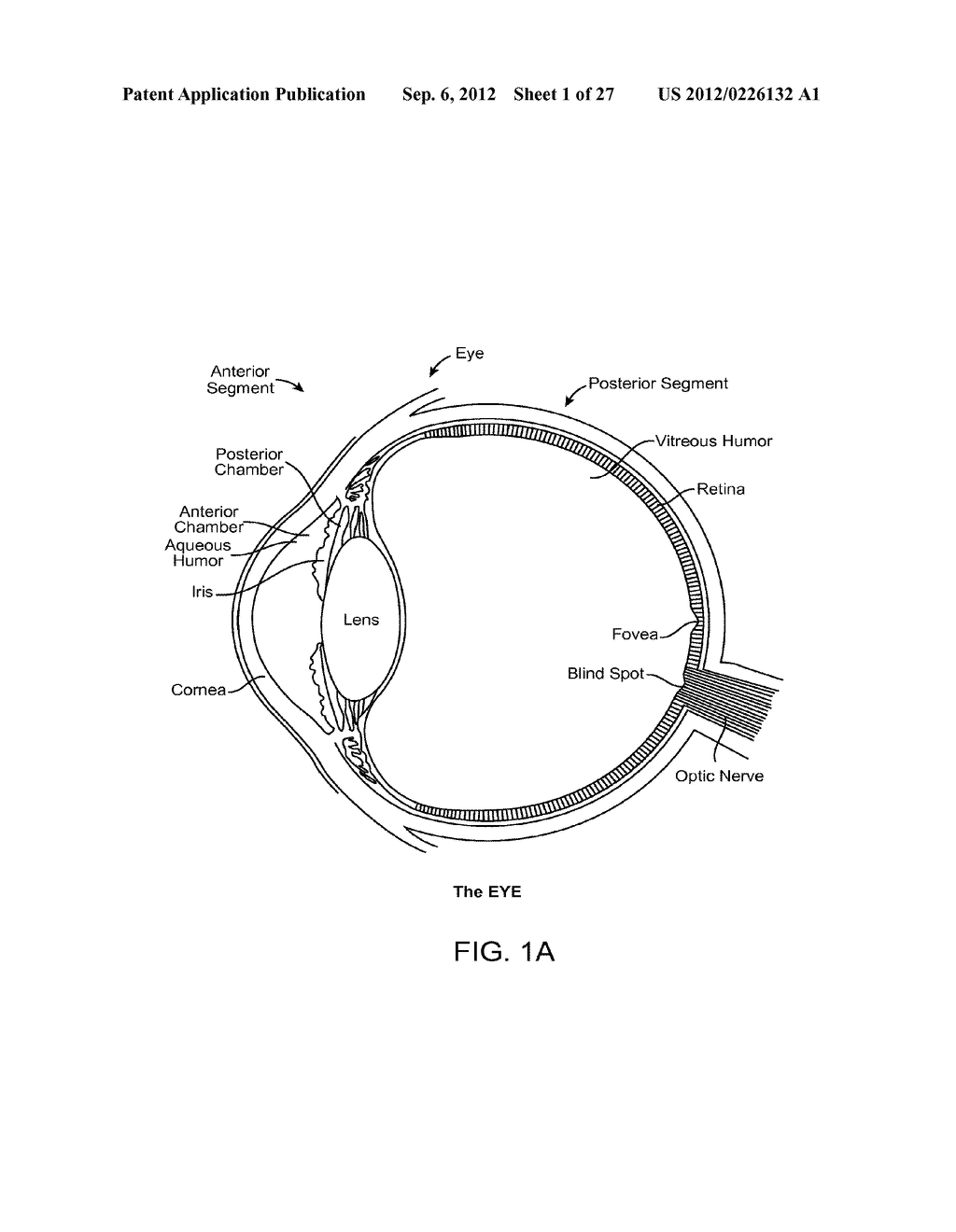 IMPLANTABLE OPHTHALMIC MEMS SENSOR DEVICES AND METHODS FOR EYE SURGERY - diagram, schematic, and image 02
