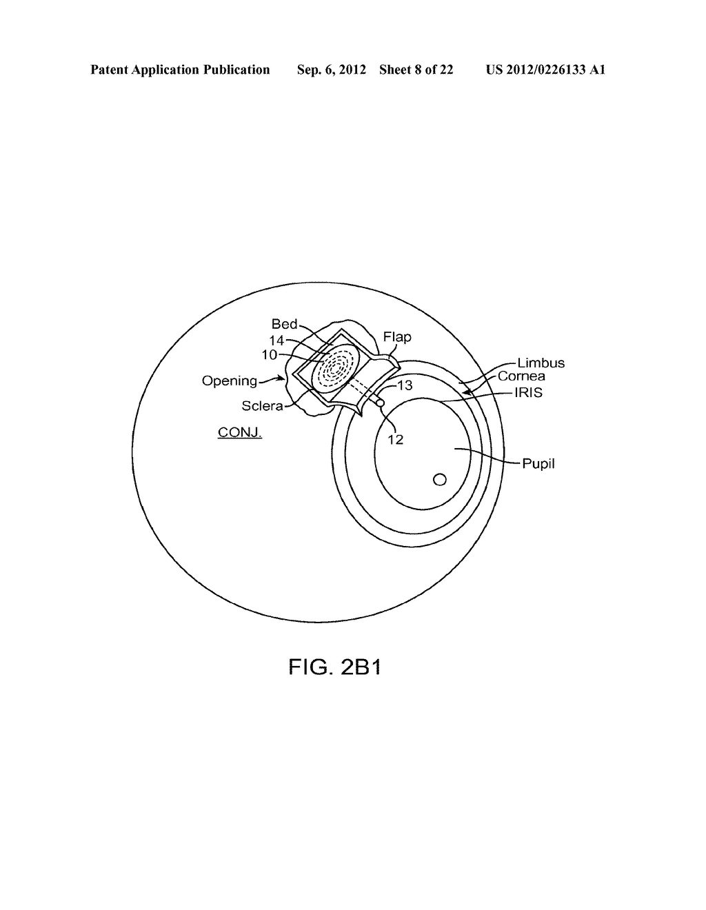 IMPLANTABLE MEMS INTRAOCULAR PRESSURE SENSOR DEVICES AND METHODS FOR     GLAUCOMA MONITORING - diagram, schematic, and image 09