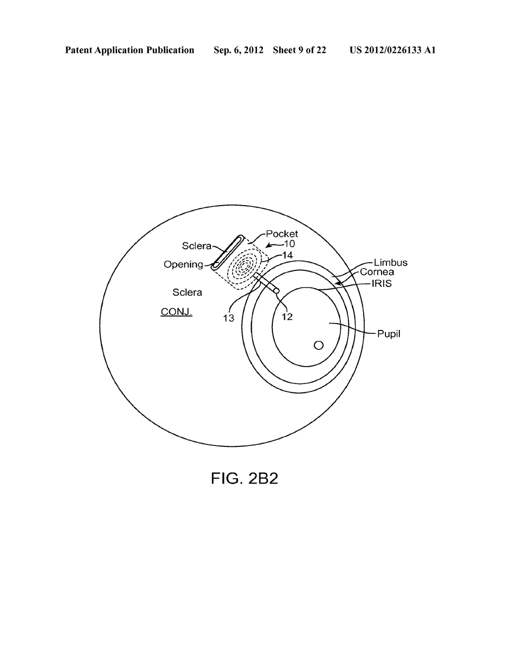 IMPLANTABLE MEMS INTRAOCULAR PRESSURE SENSOR DEVICES AND METHODS FOR     GLAUCOMA MONITORING - diagram, schematic, and image 10