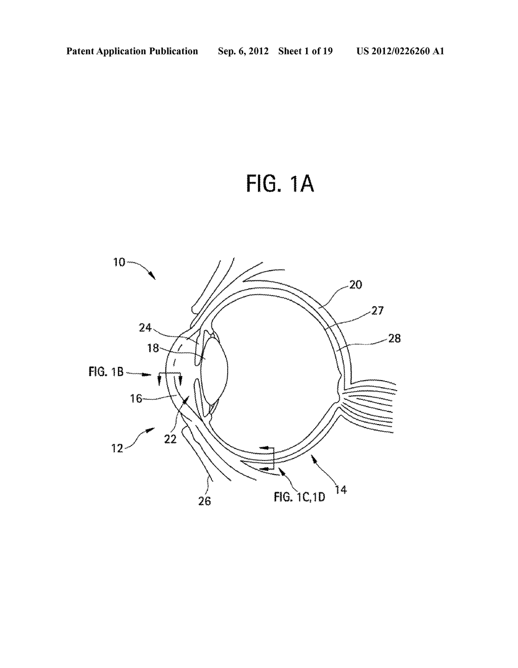 METHODS AND DEVICES FOR DRUG DELIVERY TO OCULAR TISSUE USING MICRONEEDLE - diagram, schematic, and image 02