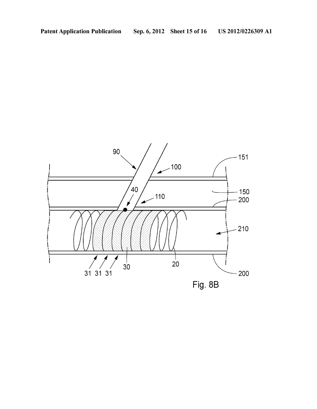 Device, Kit And Method For Closure Of A Body Lumen Puncture - diagram, schematic, and image 16