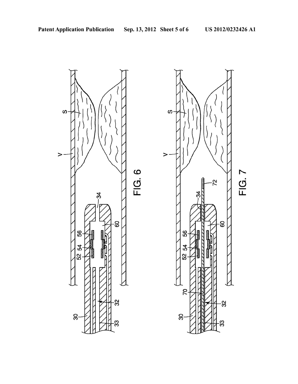 APPARATUS AND METHODS FOR ADVANCING A WIRE GUIDE - diagram, schematic, and image 06