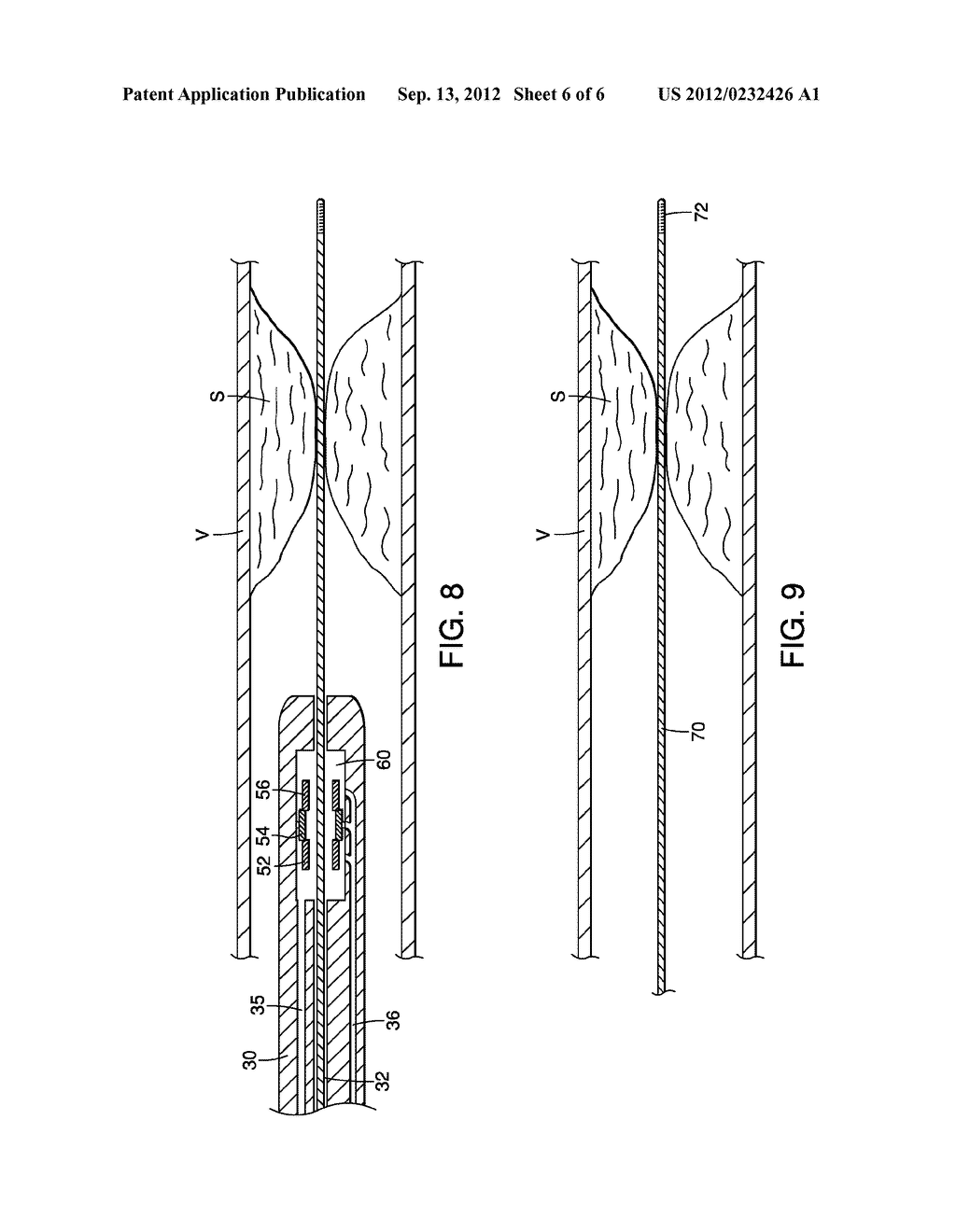 APPARATUS AND METHODS FOR ADVANCING A WIRE GUIDE - diagram, schematic, and image 07