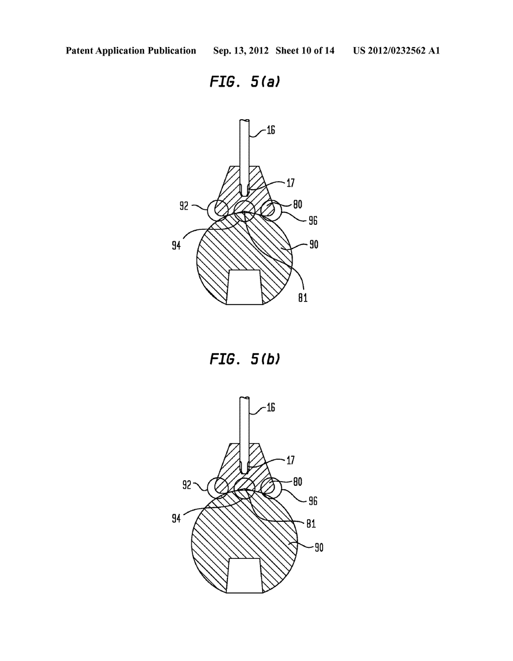 Pneumatic Surgical Instrument and Corresponding Methods for Implanting,     Extracting and Reorienting Orthopedic Implants - diagram, schematic, and image 11