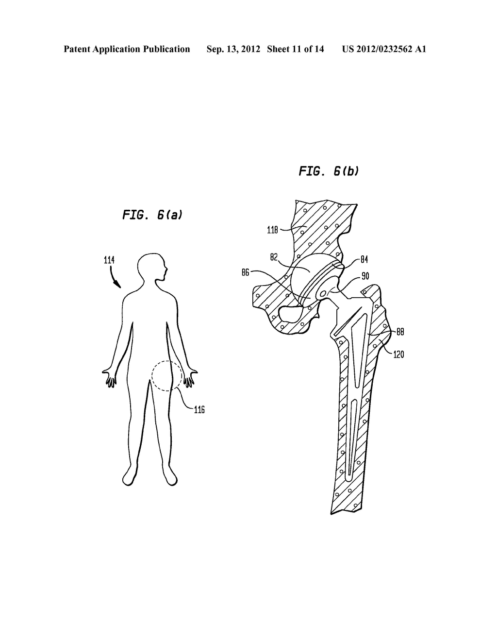 Pneumatic Surgical Instrument and Corresponding Methods for Implanting,     Extracting and Reorienting Orthopedic Implants - diagram, schematic, and image 12