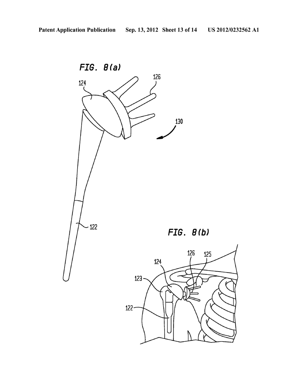 Pneumatic Surgical Instrument and Corresponding Methods for Implanting,     Extracting and Reorienting Orthopedic Implants - diagram, schematic, and image 14