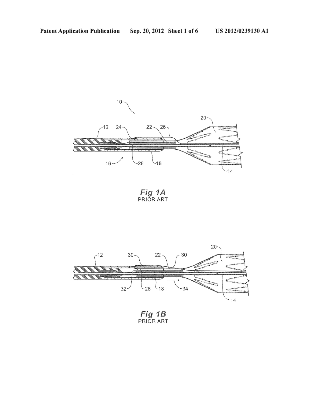 STENT DELIVERY SYSTEM WITH NITINOL TRIGGER WIRE - diagram, schematic, and image 02