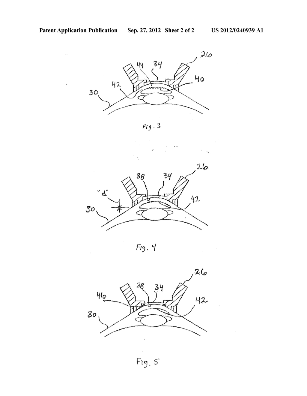 Apparatus and Method for Control of Refractive Index Changes in a Material - diagram, schematic, and image 03