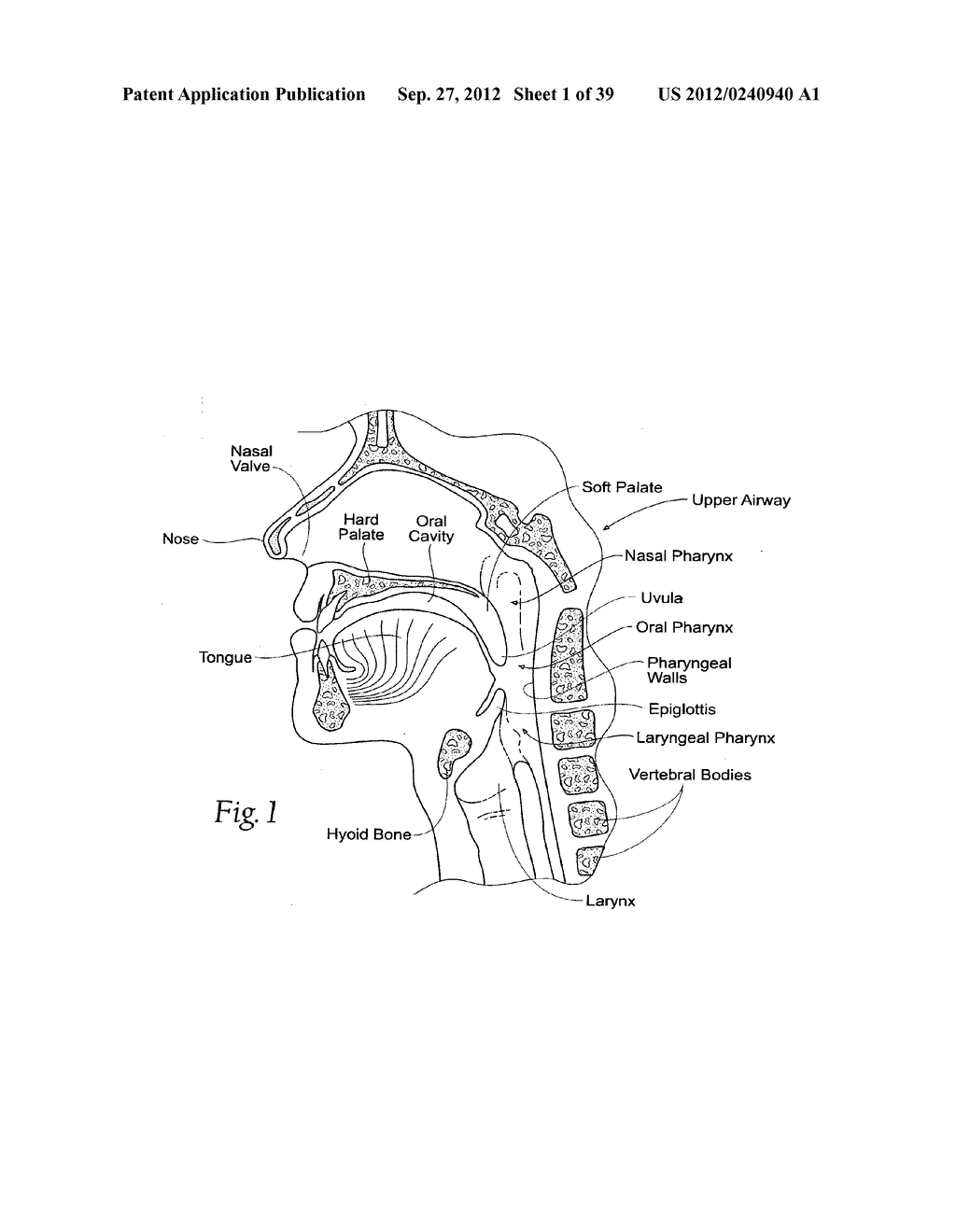 DEVICES, SYSTEMS AND METHODS USING MAGNETIC FORCE SYSTEMS AFFECTING THE     TOUNGUE OR HYOID MUSCCLES IN THE UPPER AIRWYA - diagram, schematic, and image 02
