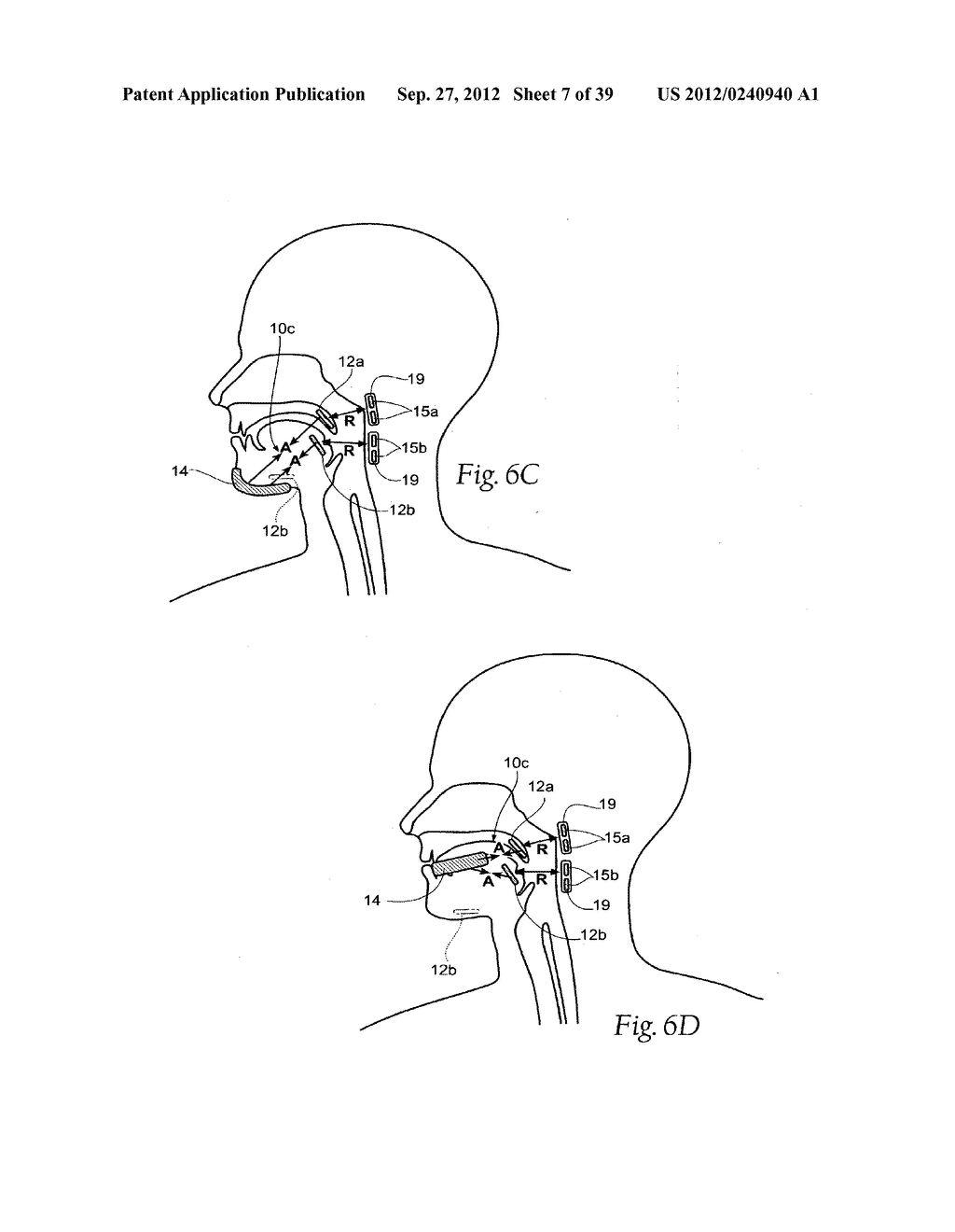 DEVICES, SYSTEMS AND METHODS USING MAGNETIC FORCE SYSTEMS AFFECTING THE     TOUNGUE OR HYOID MUSCCLES IN THE UPPER AIRWYA - diagram, schematic, and image 08