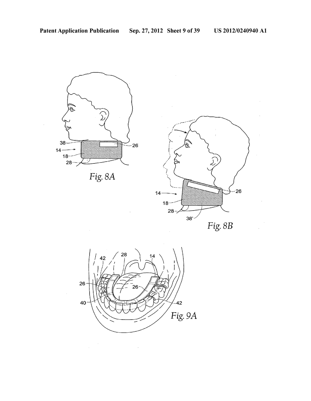 DEVICES, SYSTEMS AND METHODS USING MAGNETIC FORCE SYSTEMS AFFECTING THE     TOUNGUE OR HYOID MUSCCLES IN THE UPPER AIRWYA - diagram, schematic, and image 10