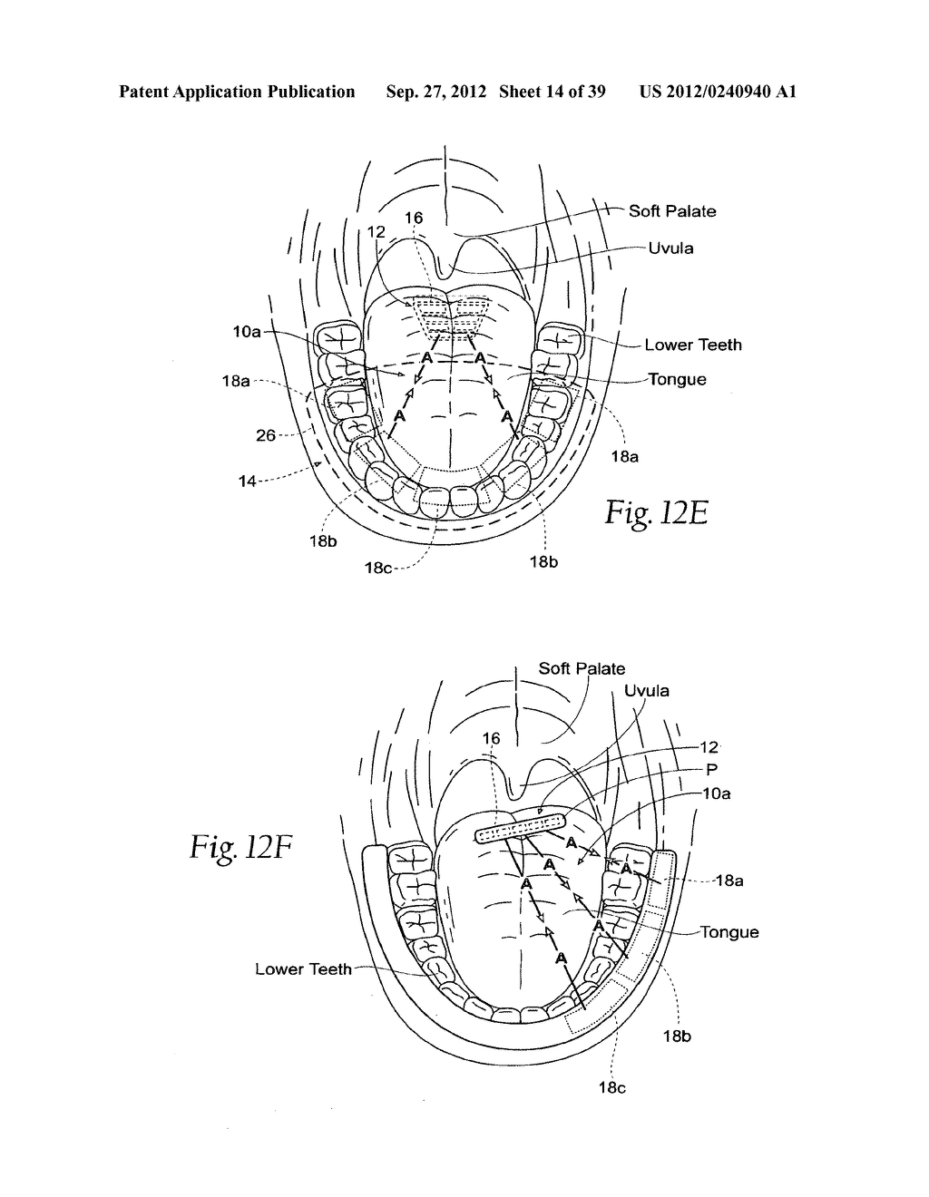 DEVICES, SYSTEMS AND METHODS USING MAGNETIC FORCE SYSTEMS AFFECTING THE     TOUNGUE OR HYOID MUSCCLES IN THE UPPER AIRWYA - diagram, schematic, and image 15