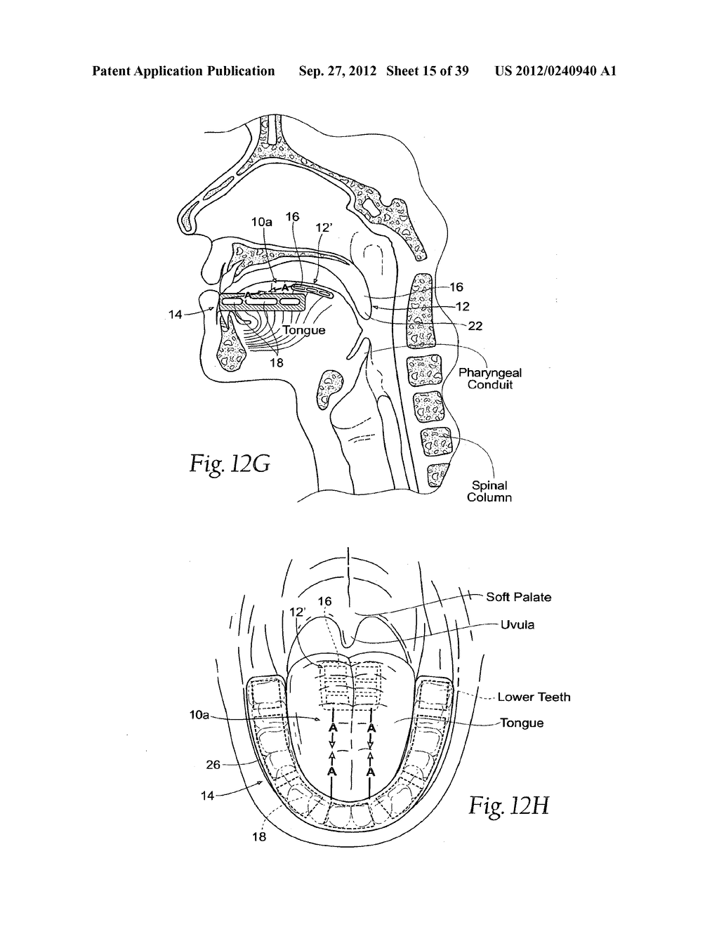DEVICES, SYSTEMS AND METHODS USING MAGNETIC FORCE SYSTEMS AFFECTING THE     TOUNGUE OR HYOID MUSCCLES IN THE UPPER AIRWYA - diagram, schematic, and image 16