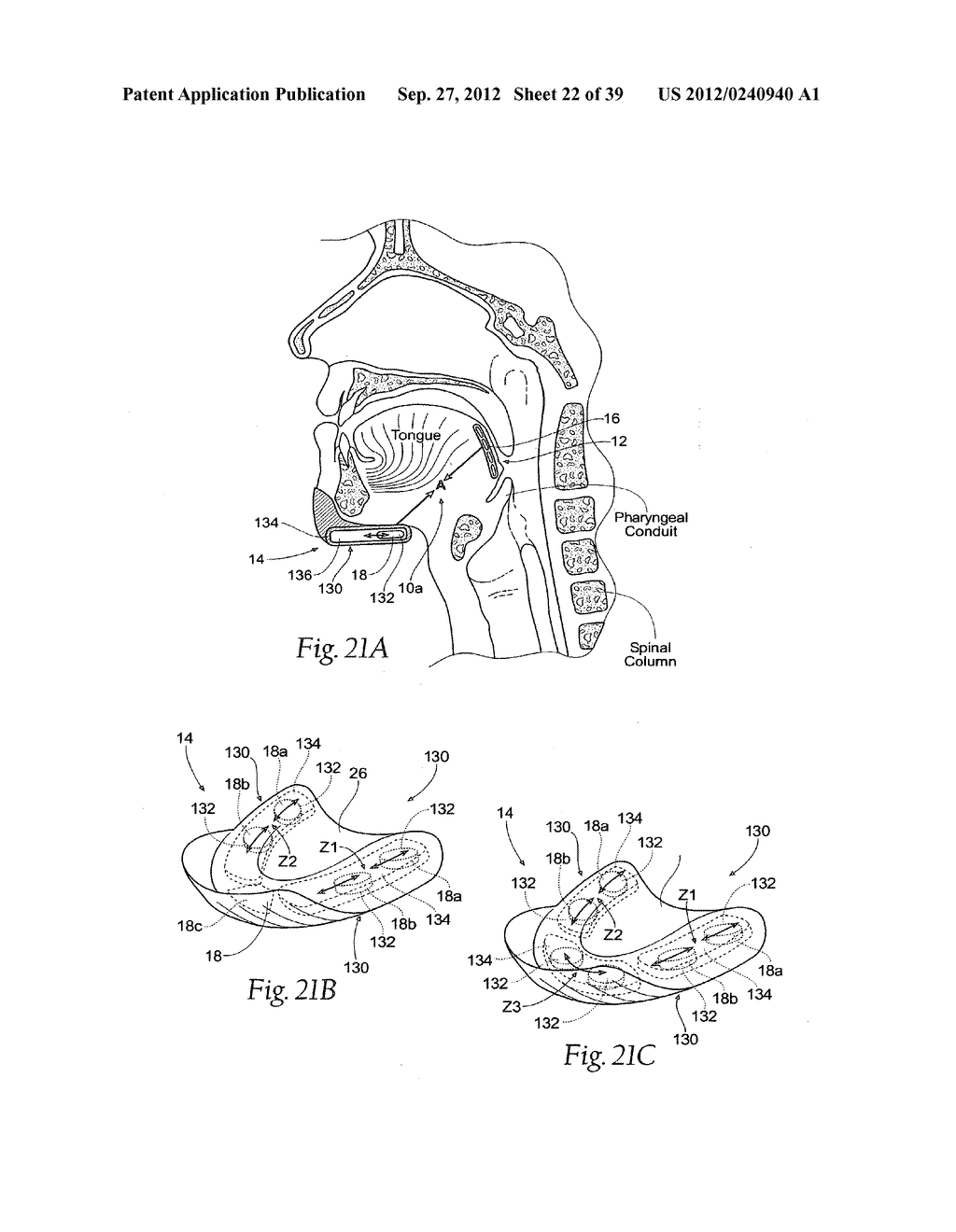 DEVICES, SYSTEMS AND METHODS USING MAGNETIC FORCE SYSTEMS AFFECTING THE     TOUNGUE OR HYOID MUSCCLES IN THE UPPER AIRWYA - diagram, schematic, and image 23