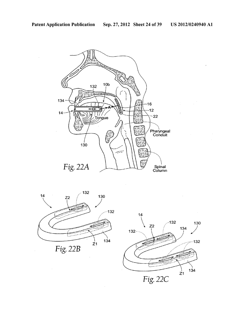 DEVICES, SYSTEMS AND METHODS USING MAGNETIC FORCE SYSTEMS AFFECTING THE     TOUNGUE OR HYOID MUSCCLES IN THE UPPER AIRWYA - diagram, schematic, and image 25