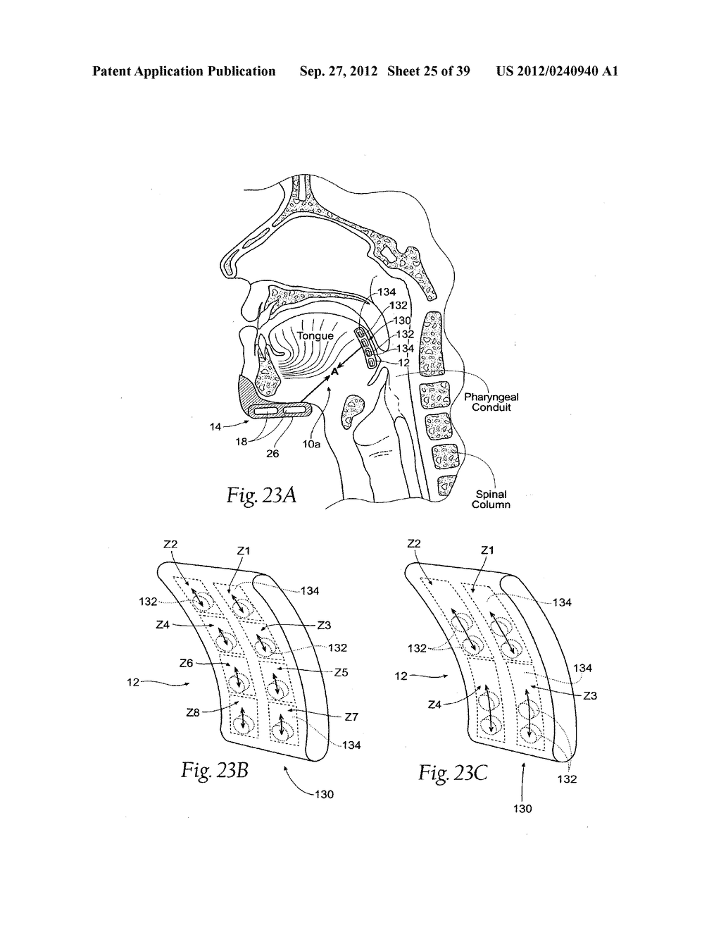 DEVICES, SYSTEMS AND METHODS USING MAGNETIC FORCE SYSTEMS AFFECTING THE     TOUNGUE OR HYOID MUSCCLES IN THE UPPER AIRWYA - diagram, schematic, and image 26