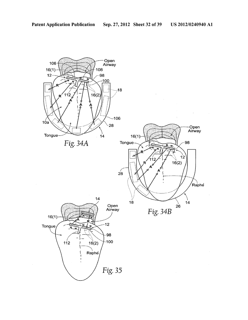 DEVICES, SYSTEMS AND METHODS USING MAGNETIC FORCE SYSTEMS AFFECTING THE     TOUNGUE OR HYOID MUSCCLES IN THE UPPER AIRWYA - diagram, schematic, and image 33